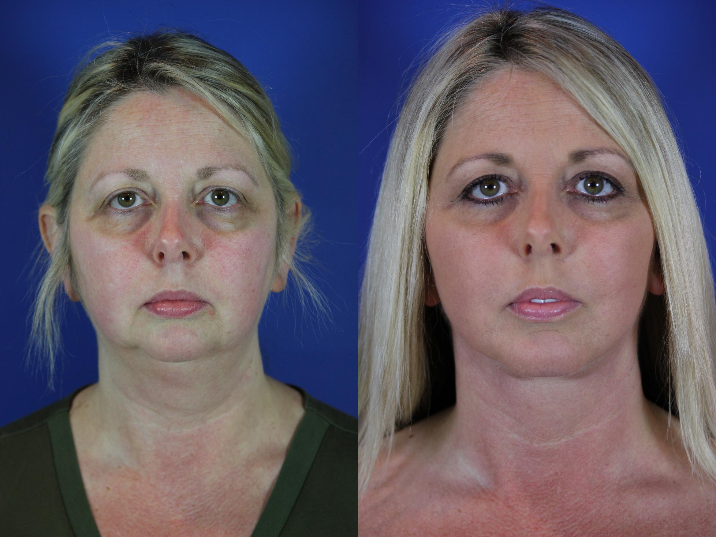 Chin Implant Case 64 Before & After Front | Brentwood, TN | Youthful Reflections