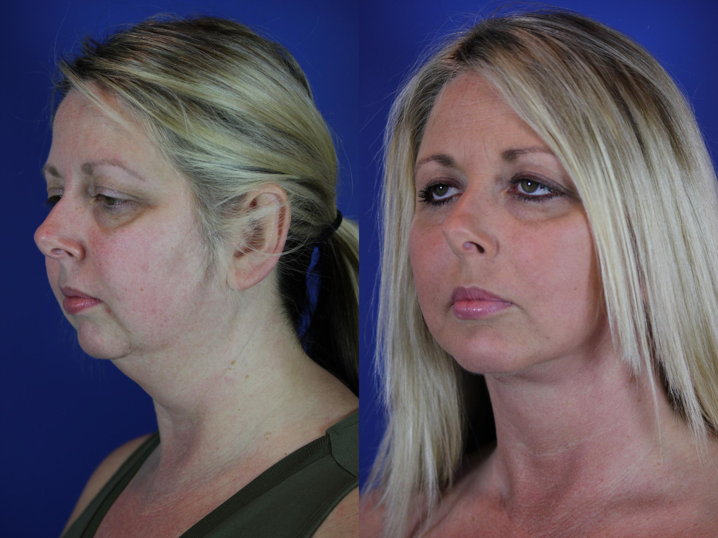 Chin Implant Case 64 Before & After Left Oblique | Nashville, TN | Youthful Reflections