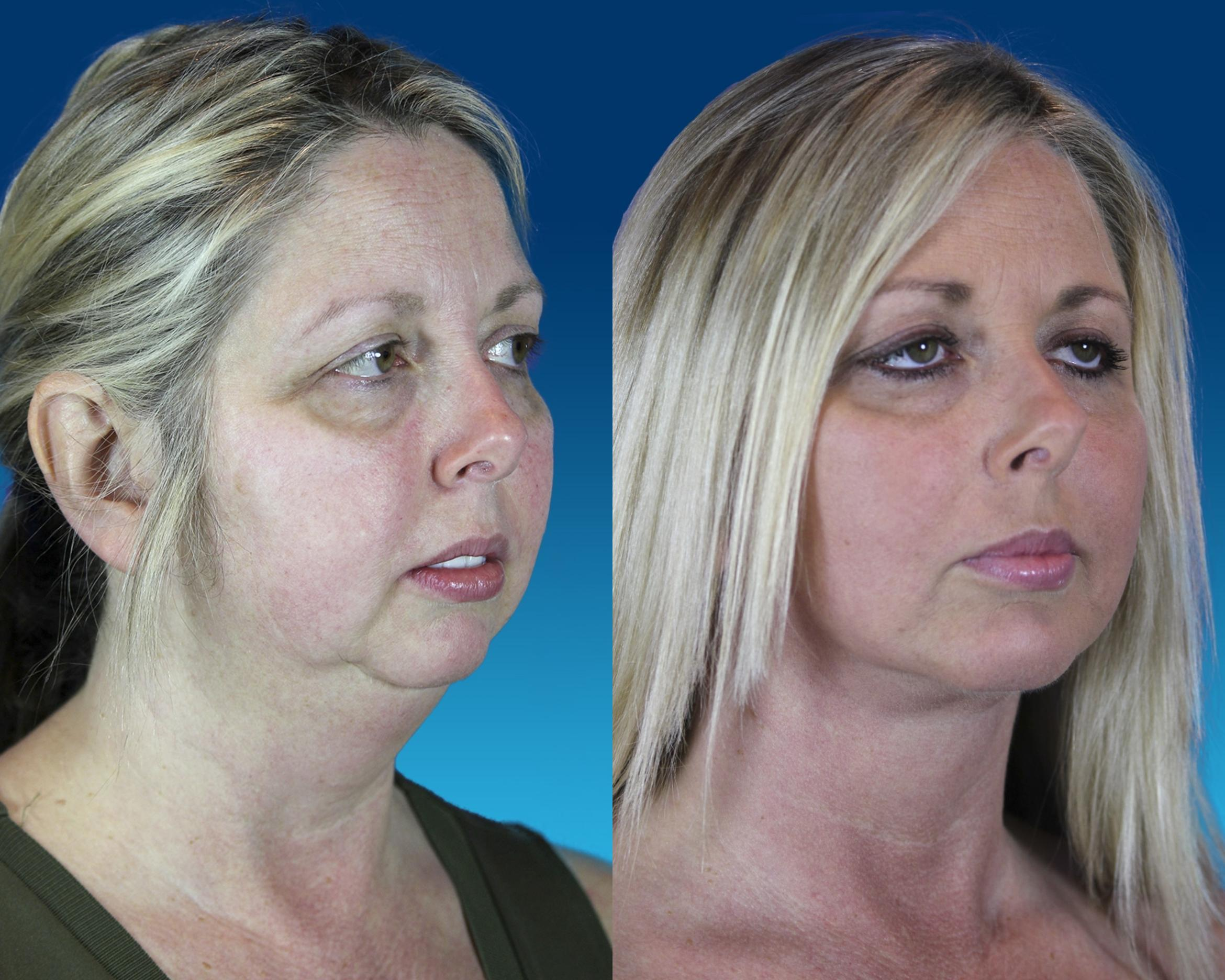 Chin Implant Case 64 Before & After Right Oblique | Nashville, TN | Youthful Reflections