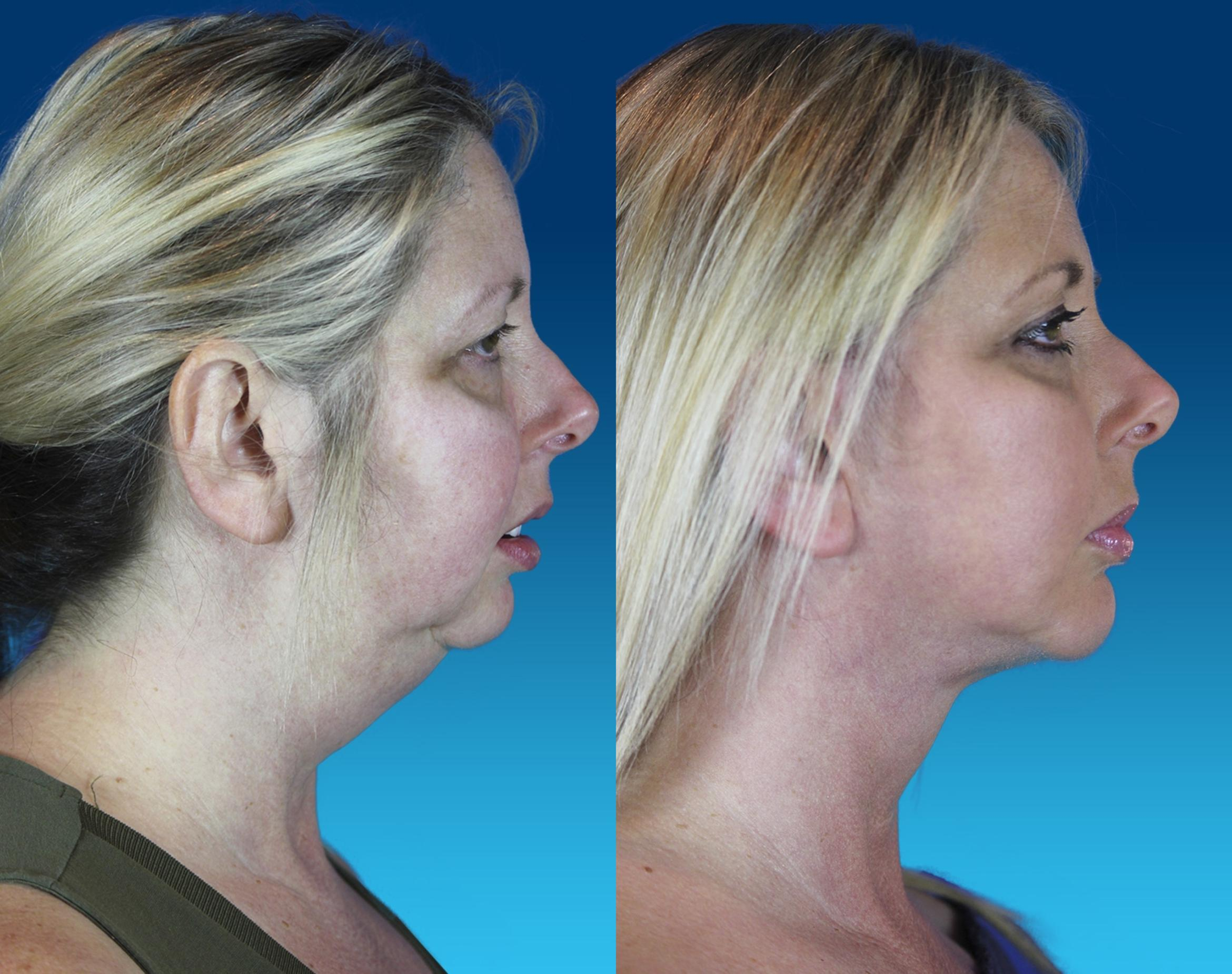 Chin Implant Case 64 Before & After Right Side | Nashville, TN | Youthful Reflections