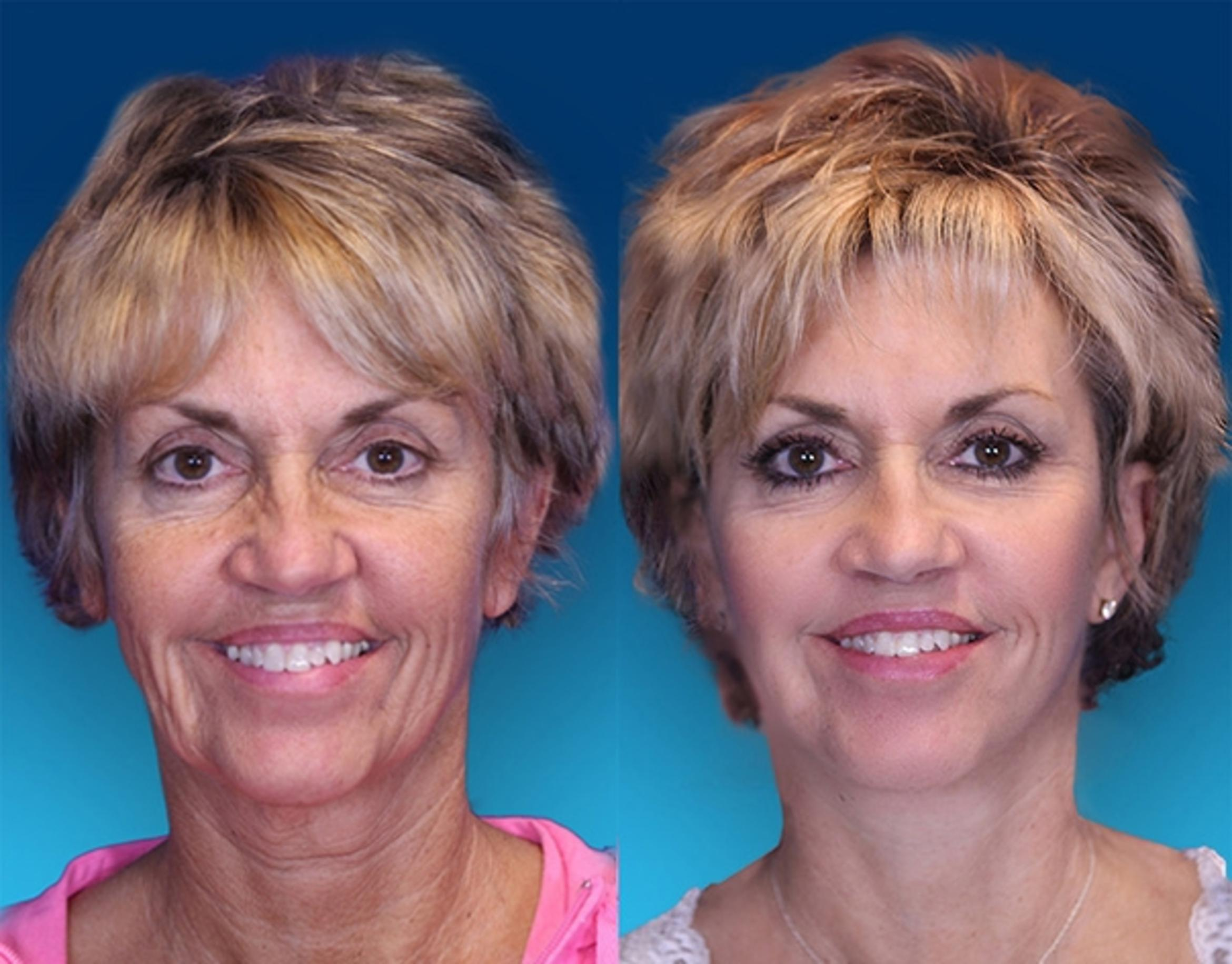 [CATEGORY_NAME] Case 1 Before & After Front | Nashville, TN | Youthful Reflections
