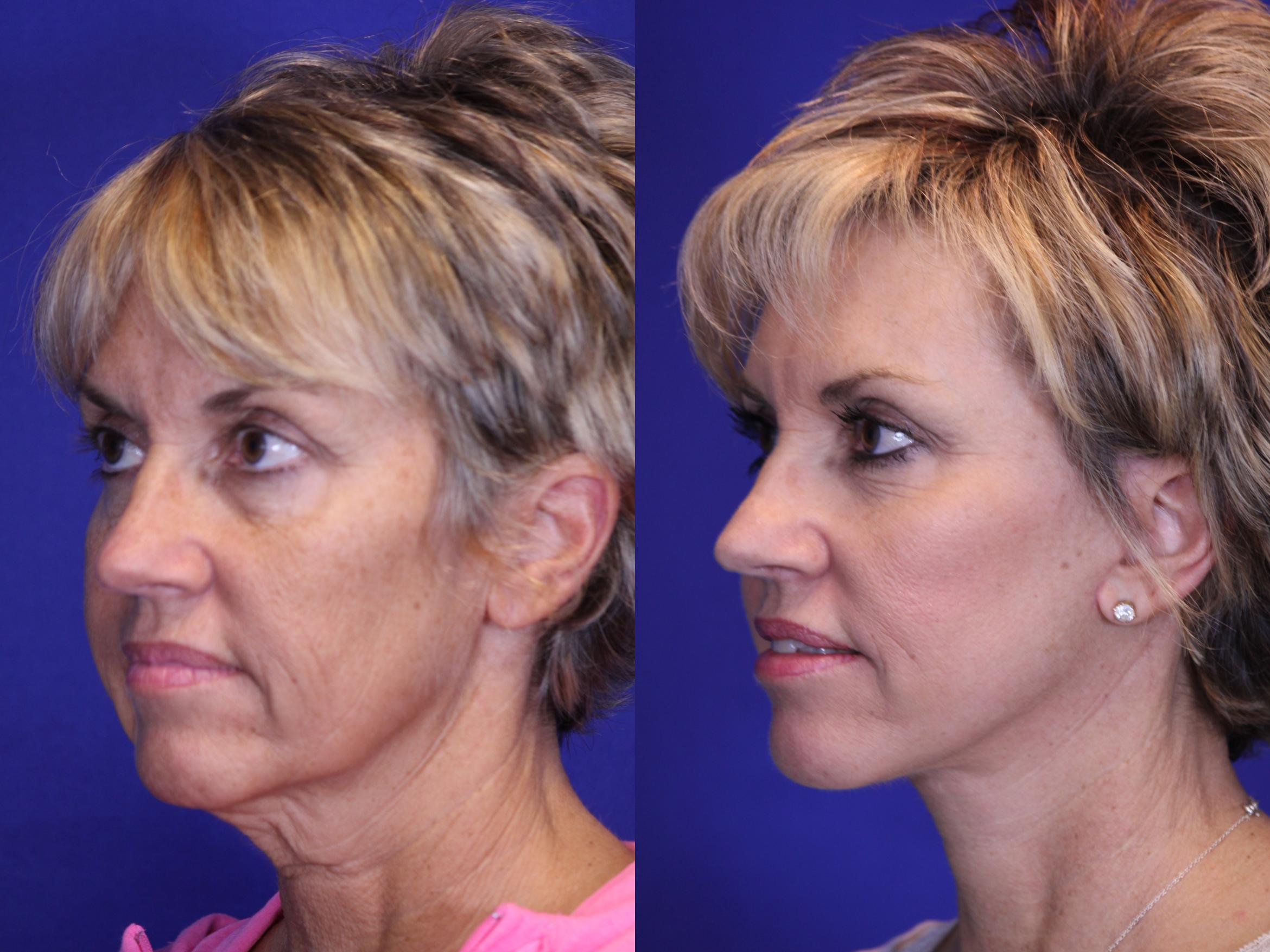 Facelift / Reflection Lift Case 1 Before & After Left Oblique | Brentwood, TN | Youthful Reflections