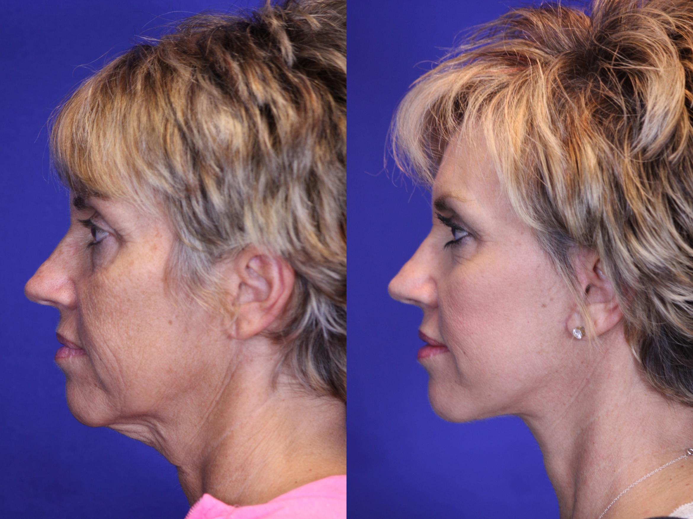 [CATEGORY_NAME] Case 1 Before & After Left Side | Nashville, TN | Youthful Reflections
