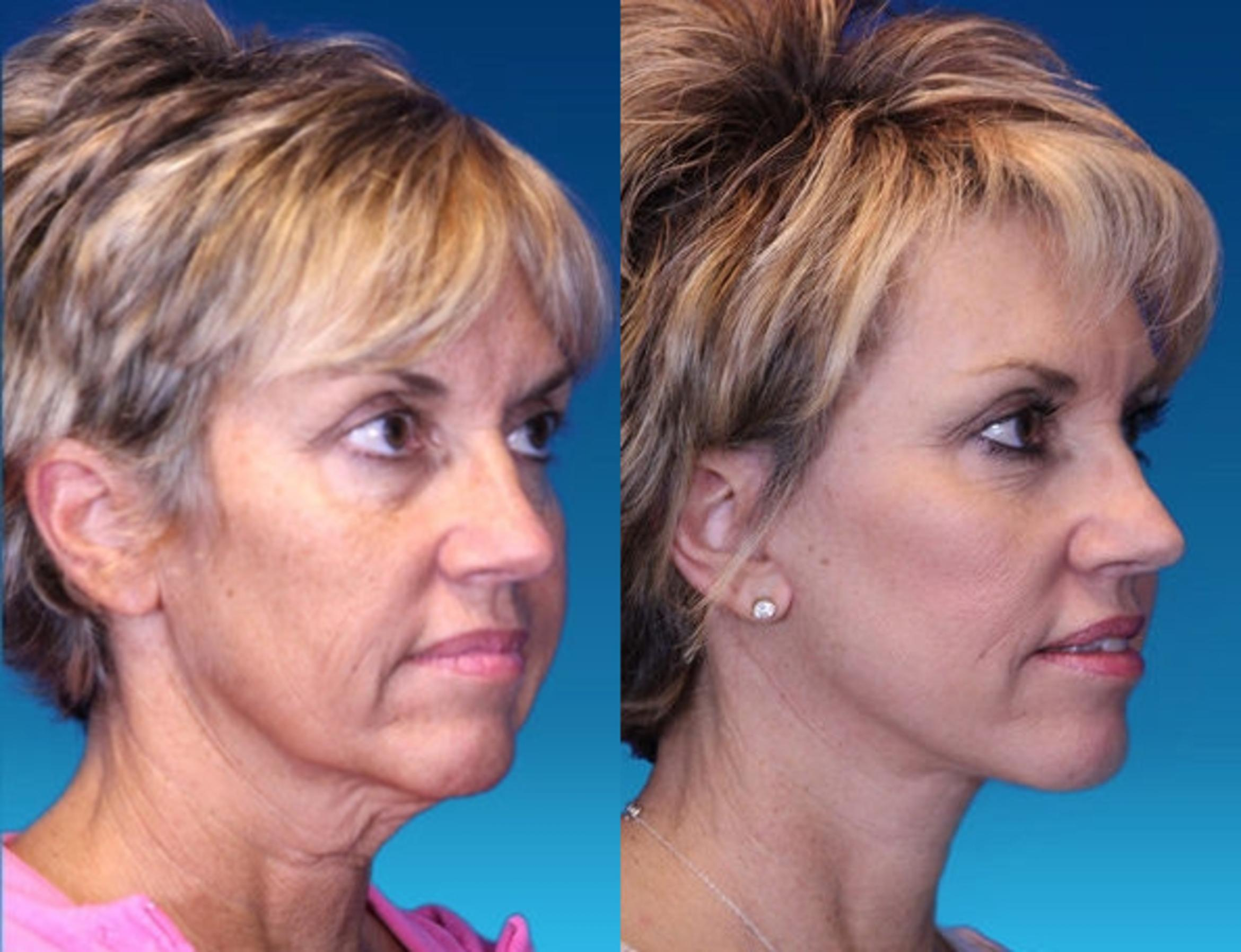[CATEGORY_NAME] Case 1 Before & After Right Oblique | Nashville, TN | Youthful Reflections