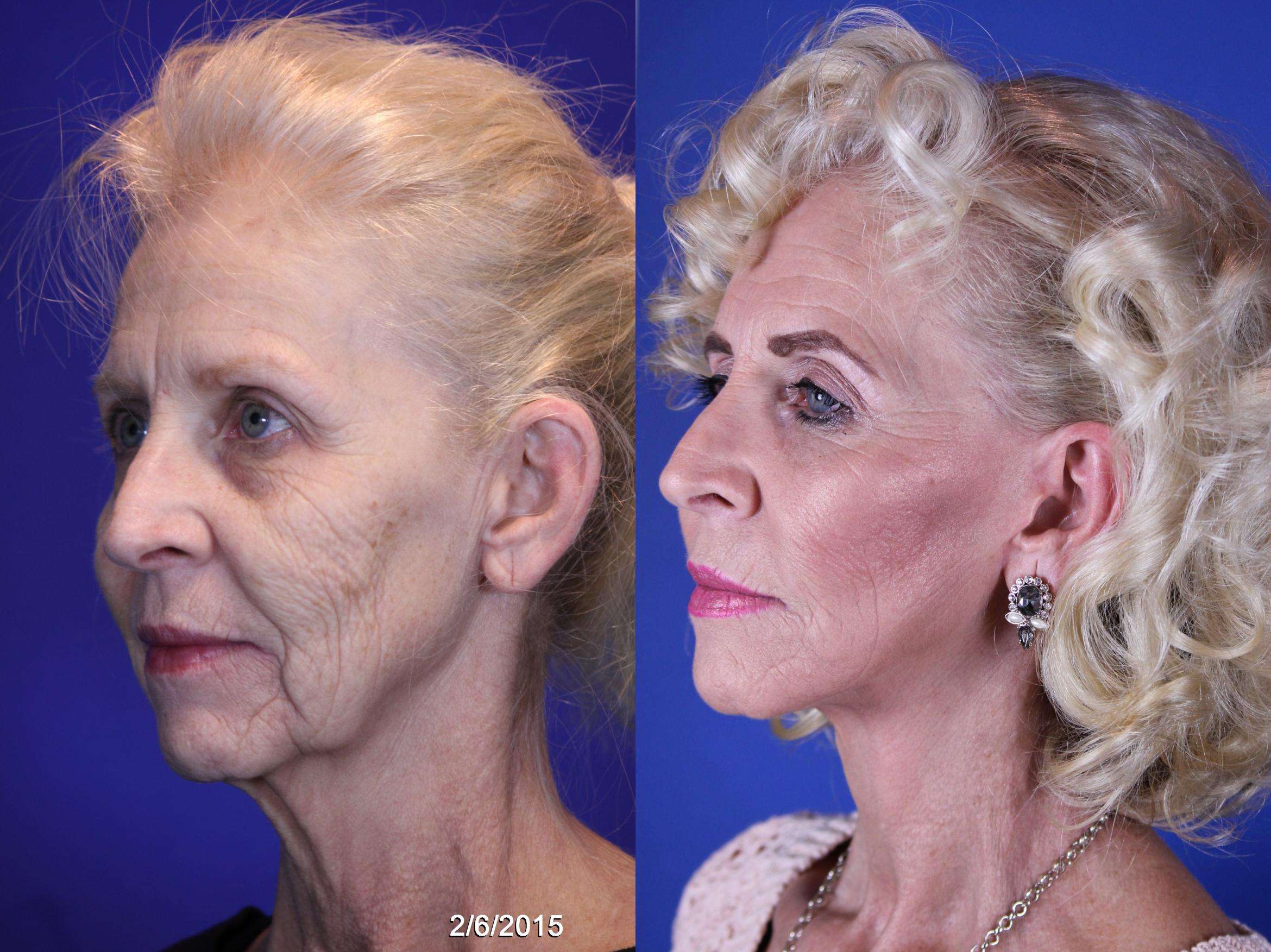 Facelift / Reflection Lift Case 10 Before & After Left Oblique | Nashville, TN | Youthful Reflections