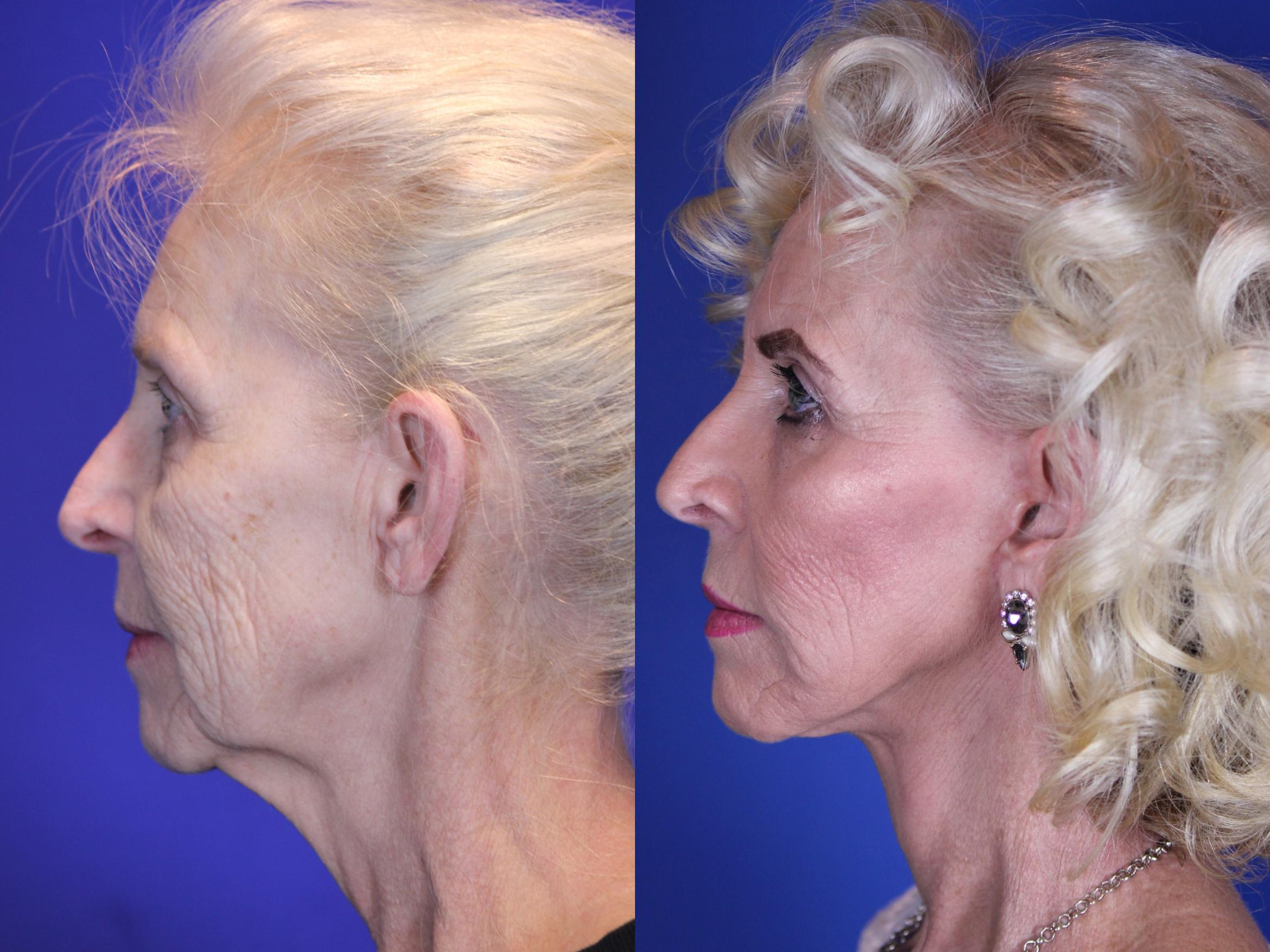 Facelift / Reflection Lift Case 10 Before & After Left Side | Nashville, TN | Youthful Reflections