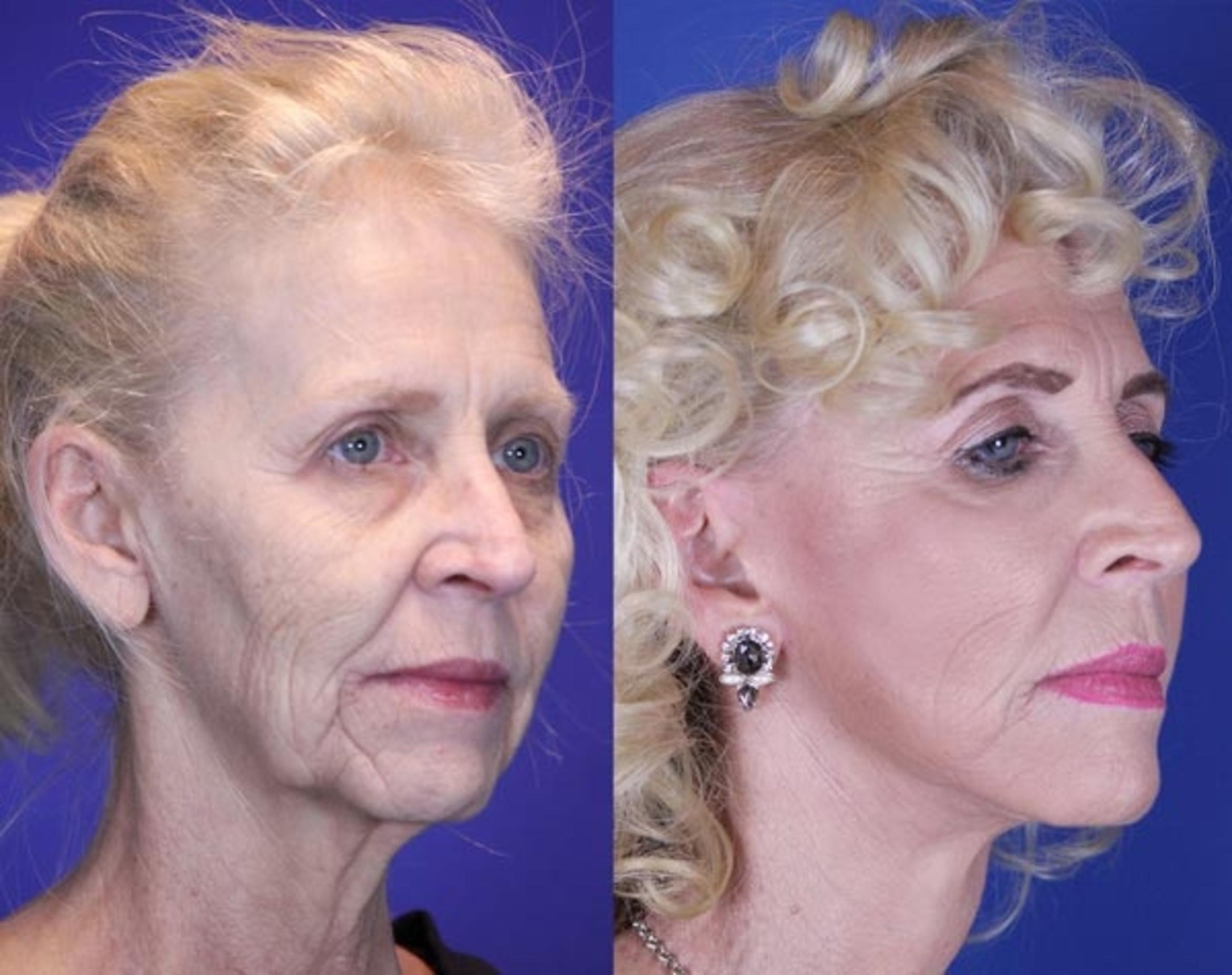Facelift / Reflection Lift Case 10 Before & After Right Oblique | Nashville, TN | Youthful Reflections