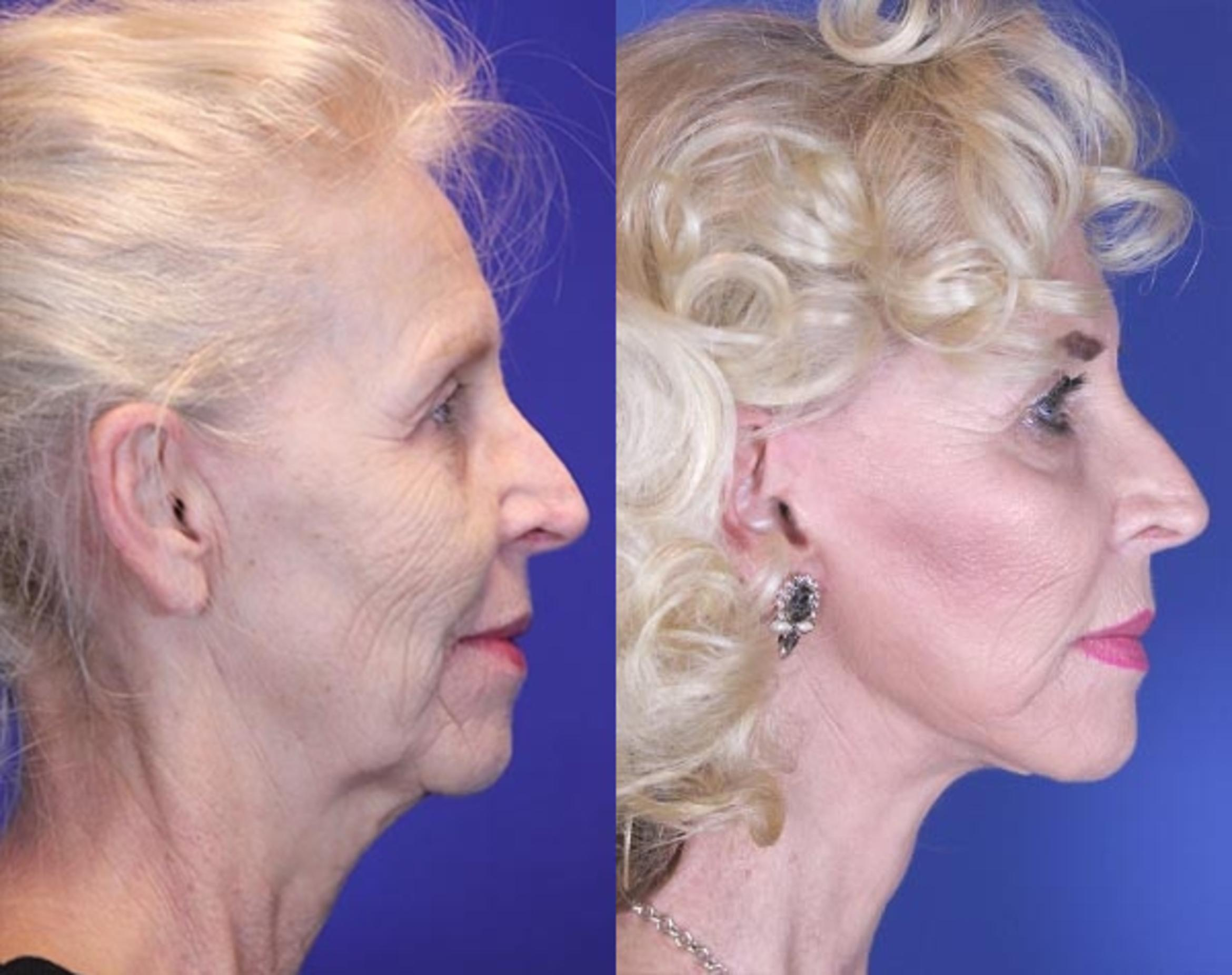 Facelift / Reflection Lift Case 10 Before & After Right Side | Nashville, TN | Youthful Reflections