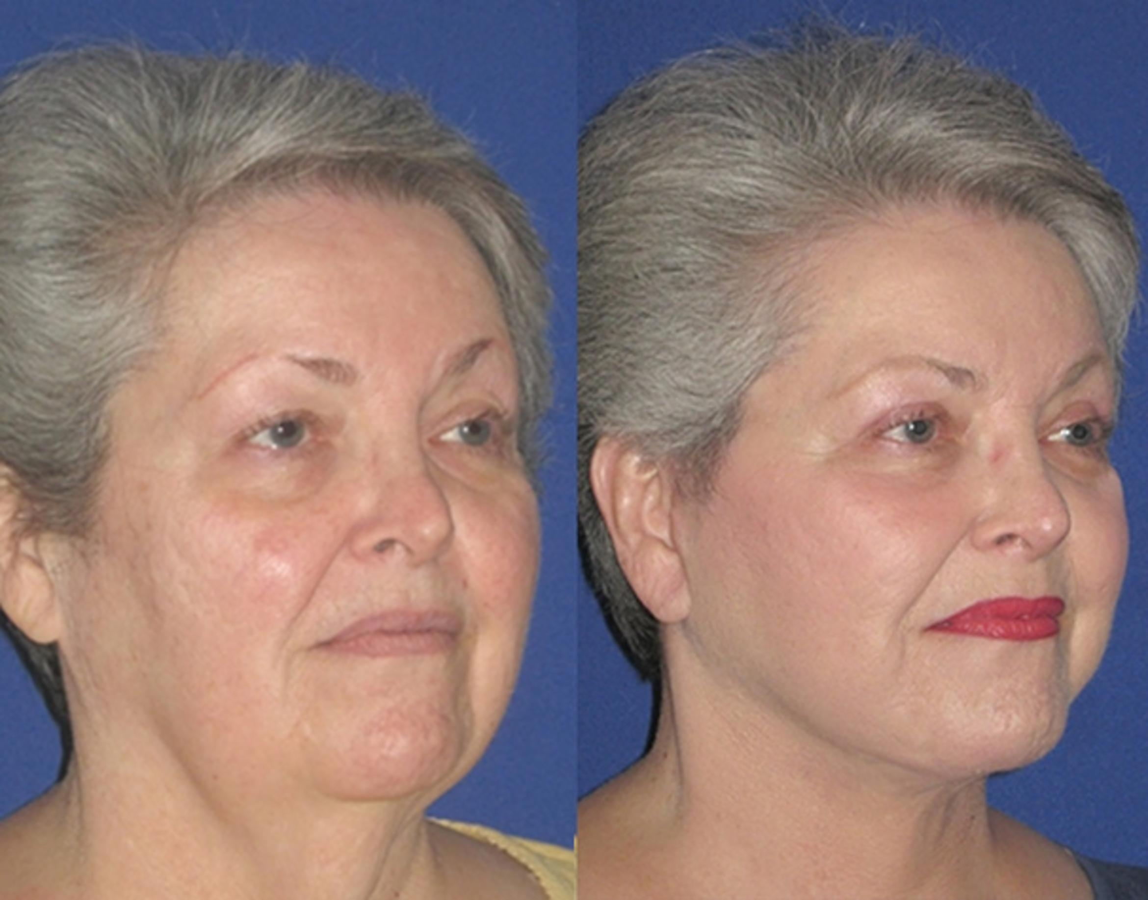 Facelift / Reflection Lift Case 12 Before & After Right Oblique | Brentwood, TN | Youthful Reflections
