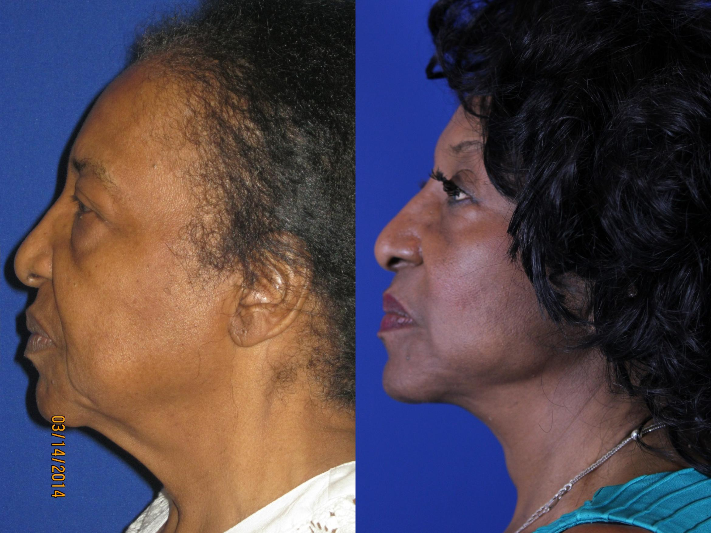Facelift / Reflection Lift Case 14 Before & After Left Side | Nashville, TN | Youthful Reflections