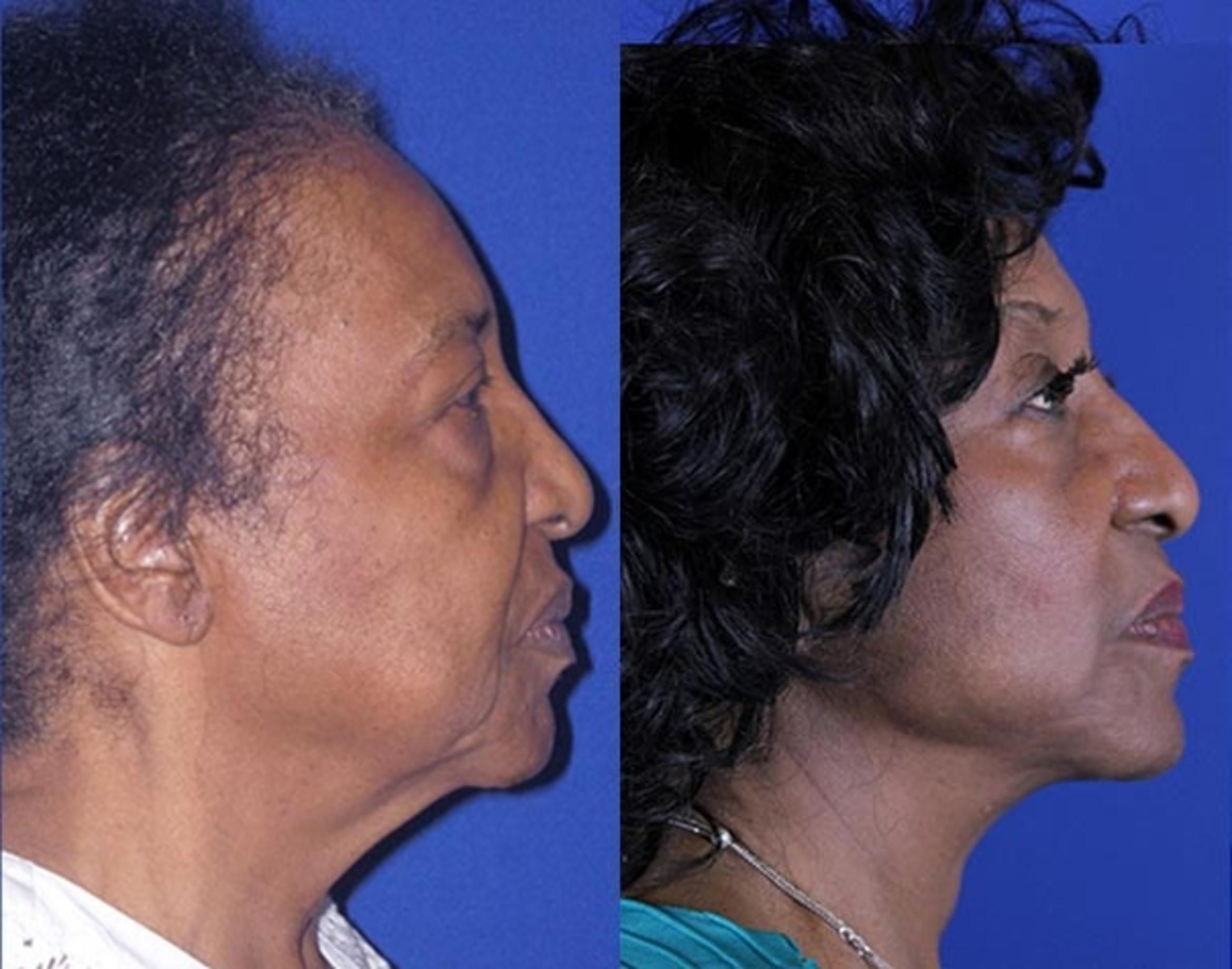 Facelift / Reflection Lift Case 14 Before & After Right Side | Nashville, TN | Youthful Reflections
