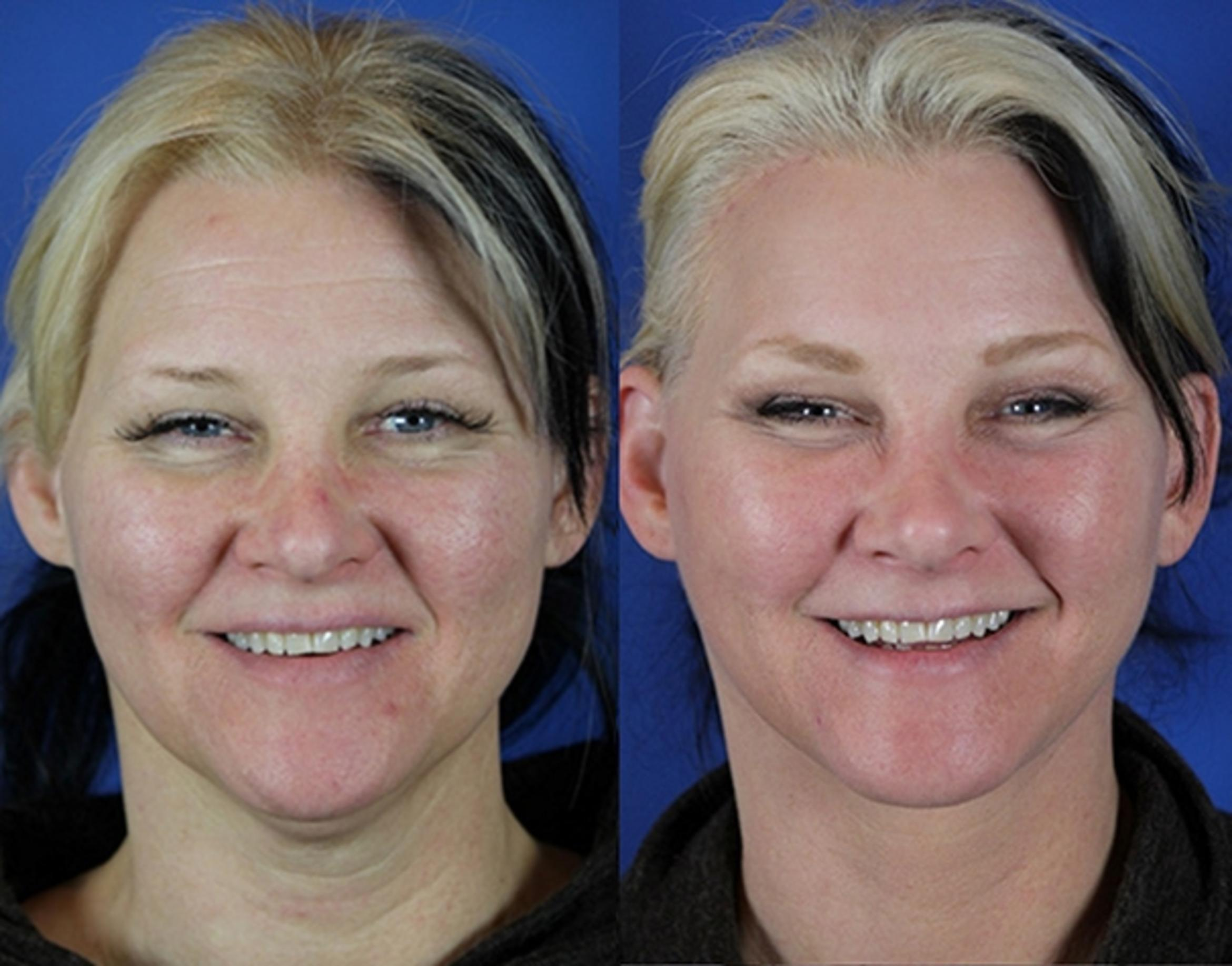 Facelift / Reflection Lift Case 15 Before & After Front | Nashville, TN | Youthful Reflections