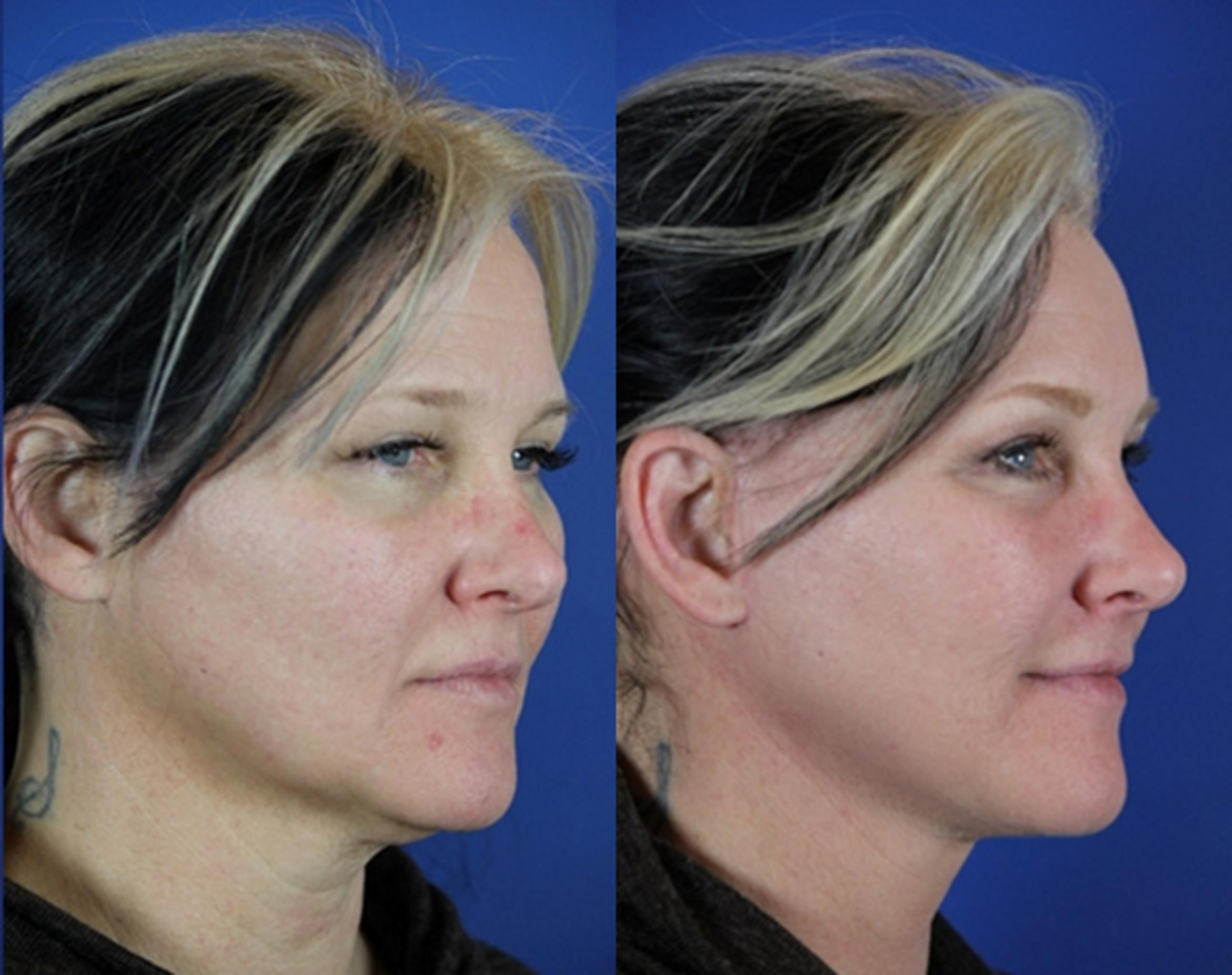 Facelift / Reflection Lift Case 15 Before & After Right Oblique | Nashville, TN | Youthful Reflections