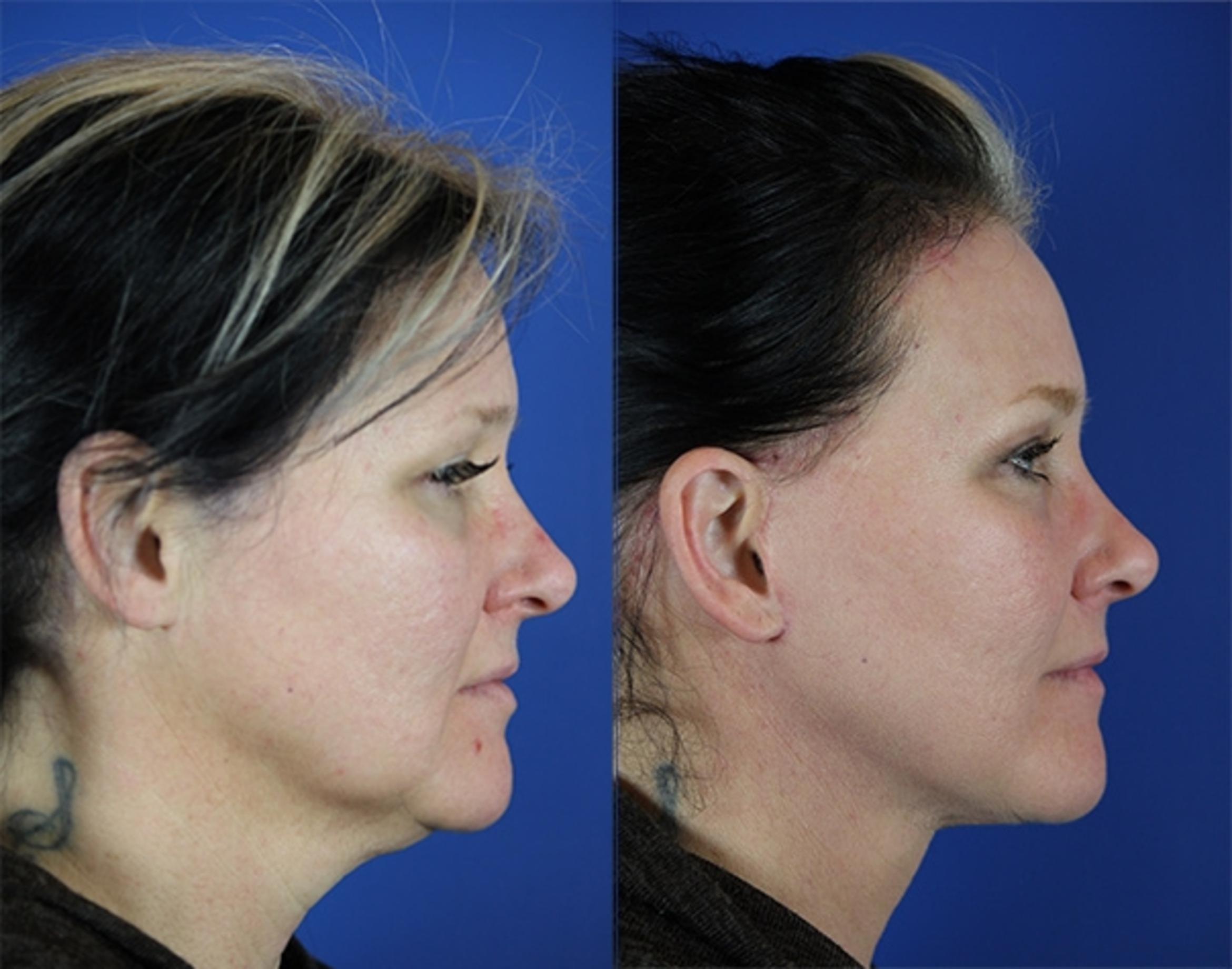 Facelift / Reflection Lift Case 15 Before & After Right Side | Nashville, TN | Youthful Reflections
