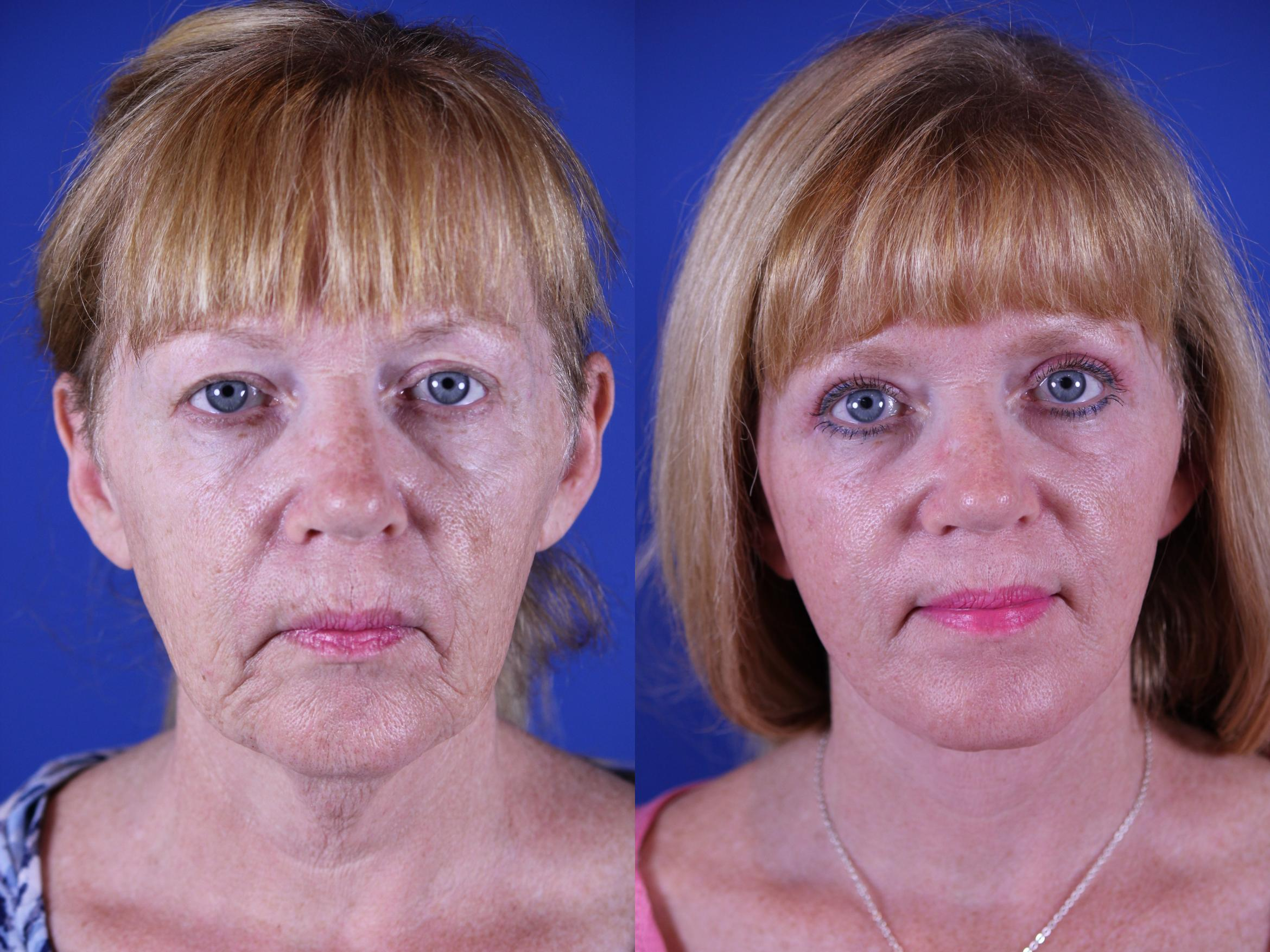 Upper Blepharoplasty Case 16 Before & After Front | Nashville, TN | Youthful Reflections