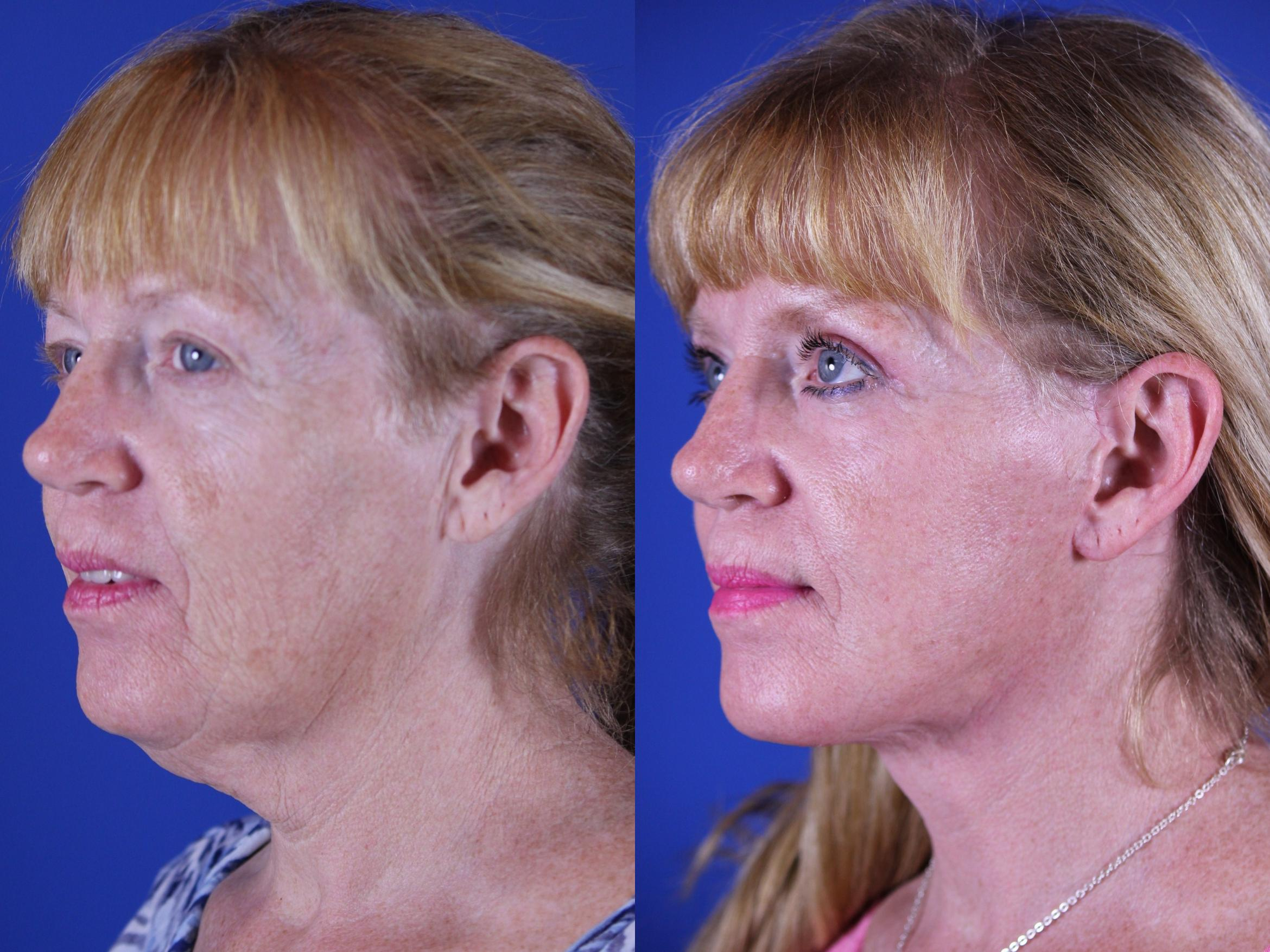 Upper Blepharoplasty Case 16 Before & After Left Oblique | Nashville, TN | Youthful Reflections