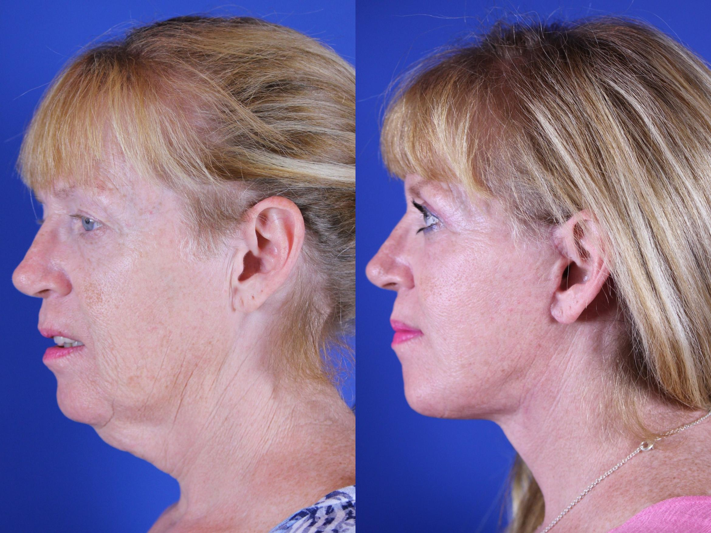 Upper Blepharoplasty Case 16 Before & After Left Side | Nashville, TN | Youthful Reflections