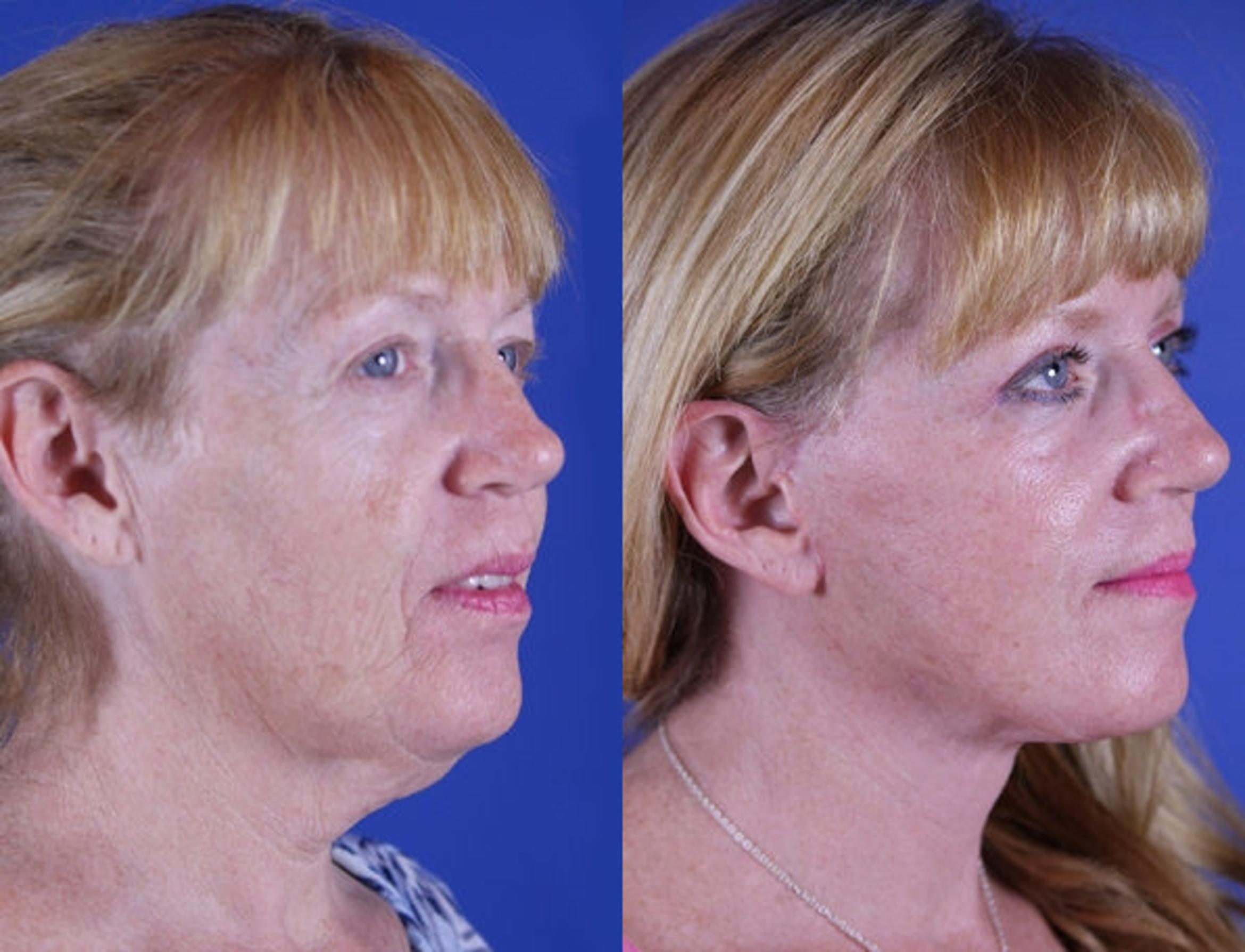 Upper Blepharoplasty Case 16 Before & After Right Oblique | Nashville, TN | Youthful Reflections