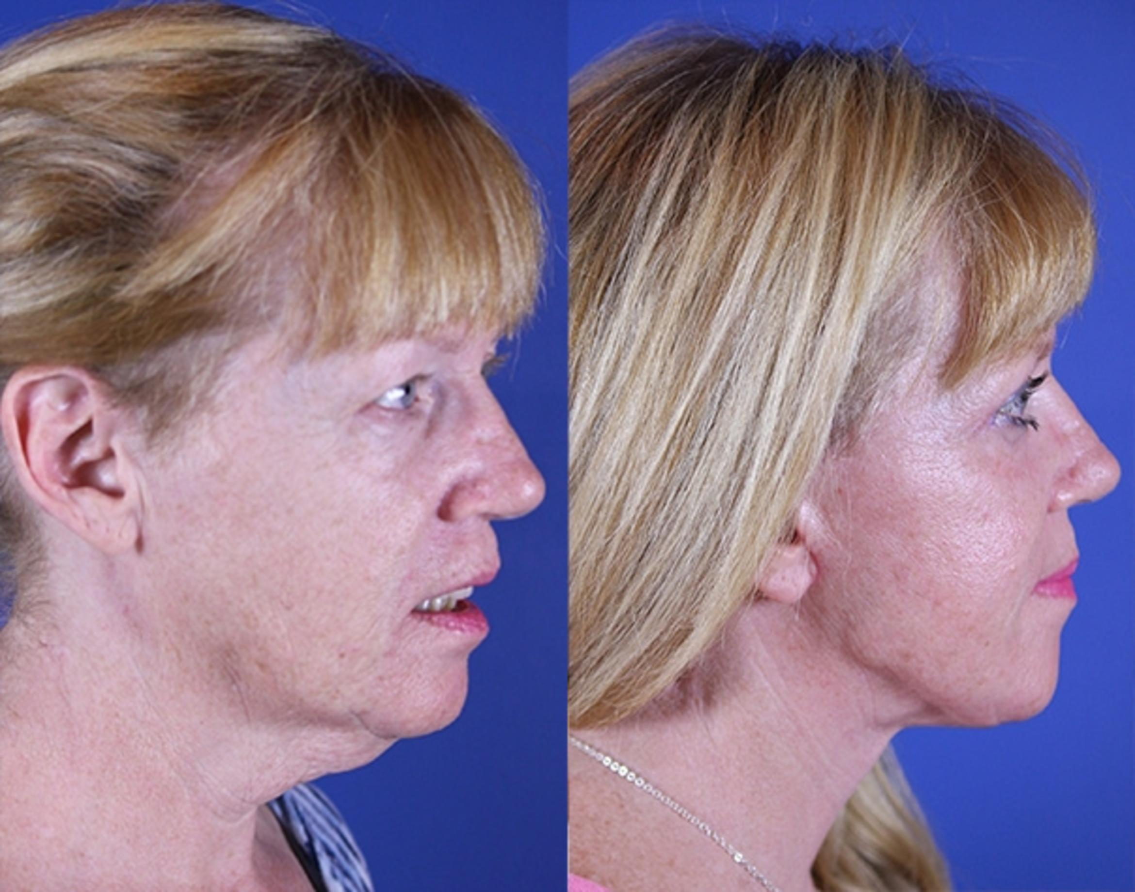 Upper Blepharoplasty Case 16 Before & After Right Side | Nashville, TN | Youthful Reflections