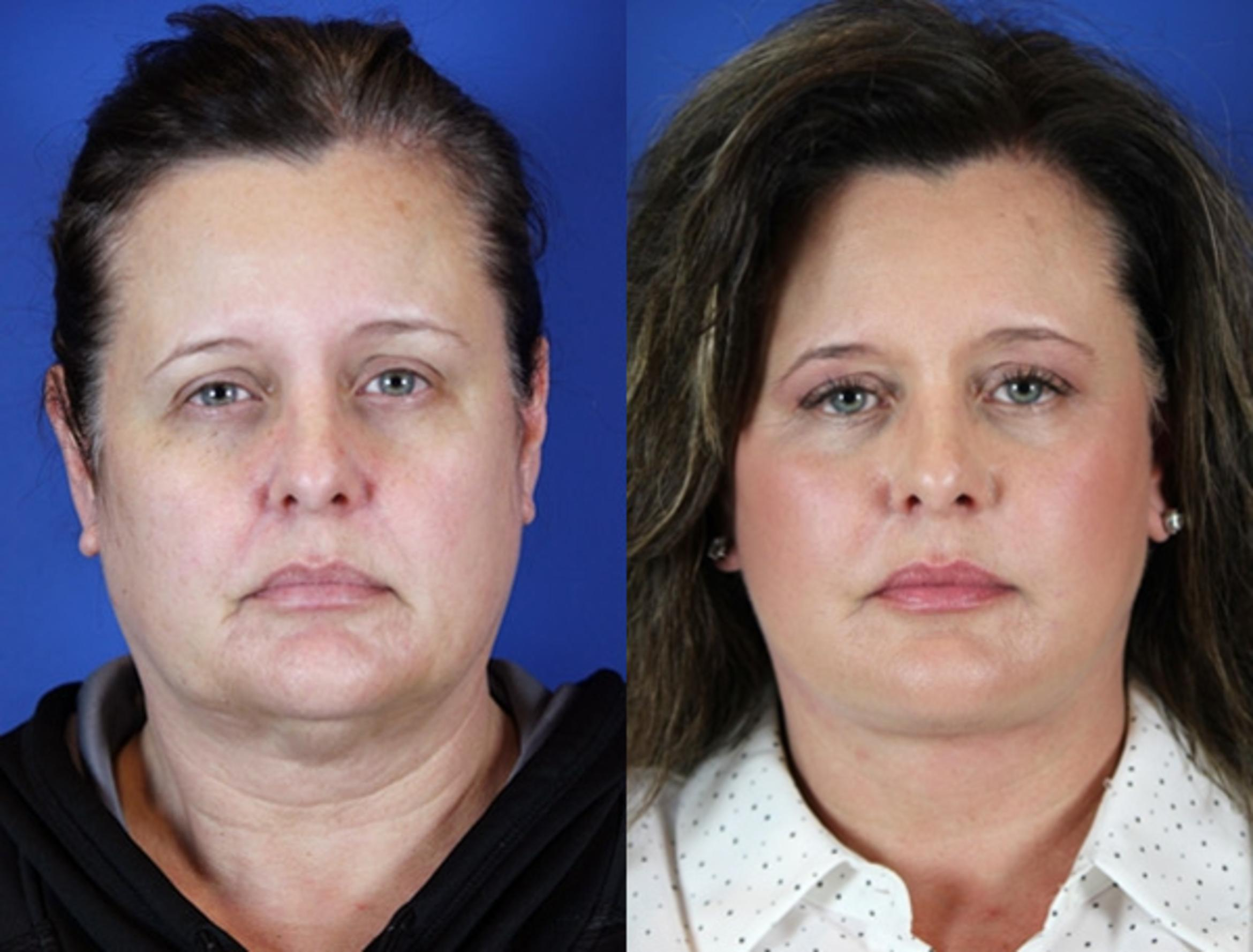 Facelift / Reflection Lift Case 17 Before & After Front | Brentwood, TN | Youthful Reflections