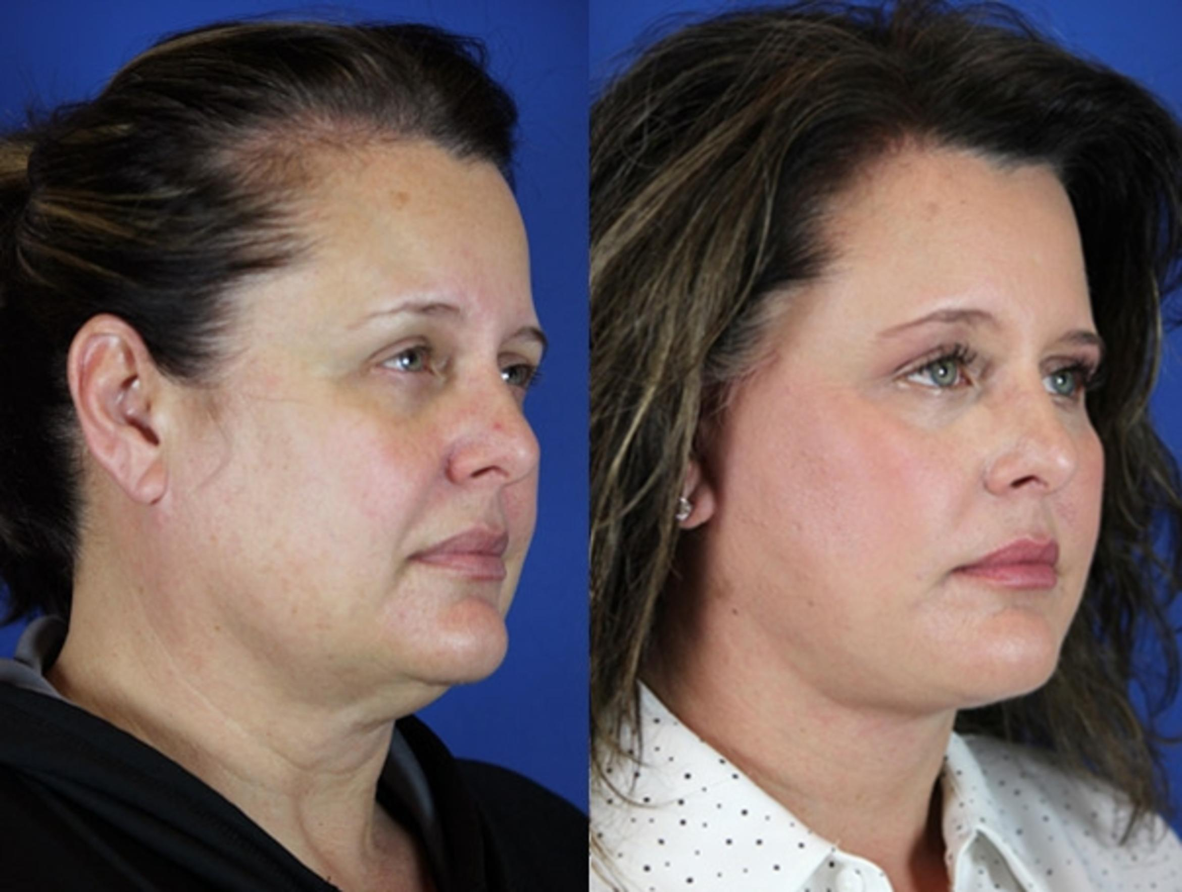 Facelift / Reflection Lift Case 17 Before & After Right Oblique | Brentwood, TN | Youthful Reflections