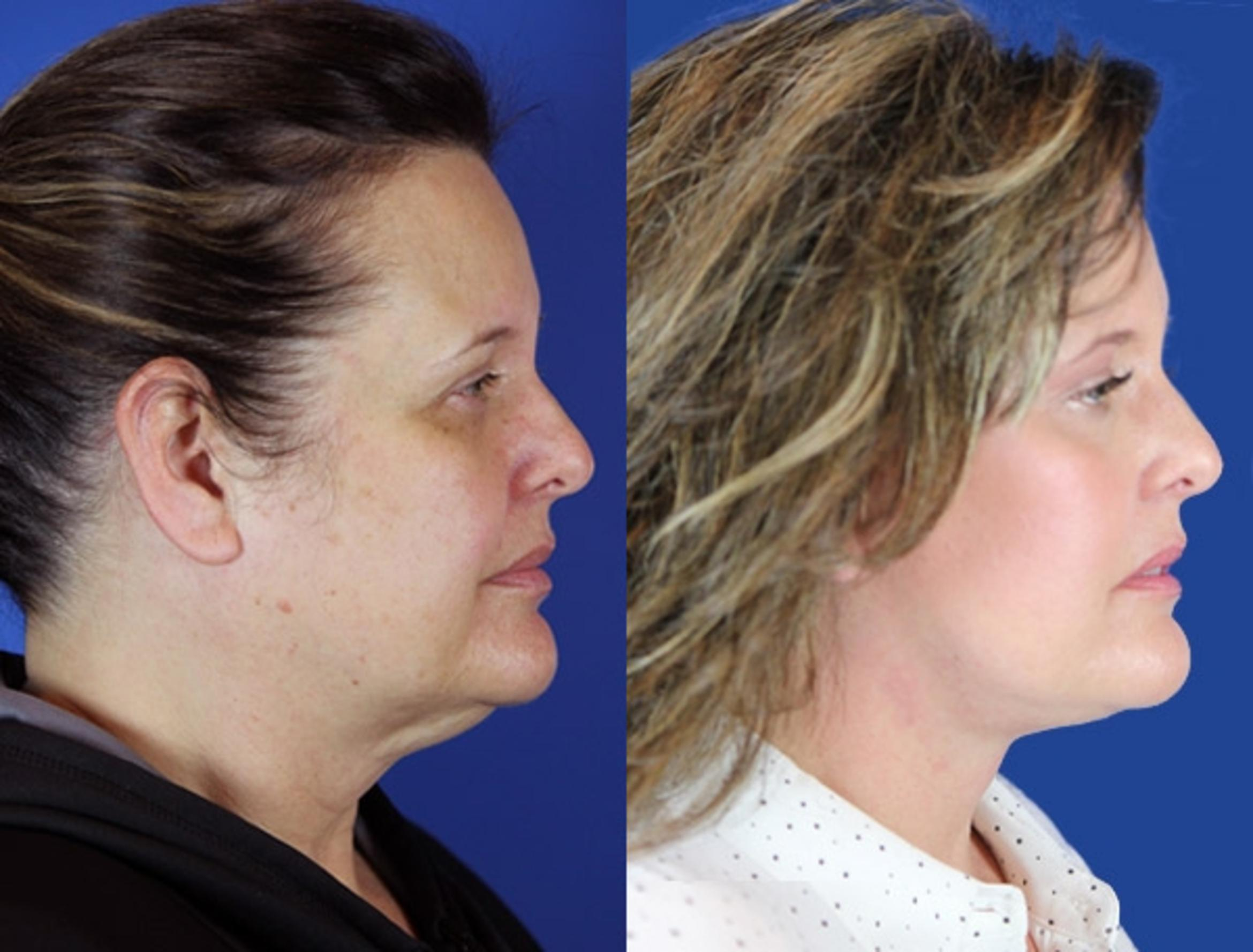 Facelift / Reflection Lift Case 17 Before & After Right Side | Brentwood, TN | Youthful Reflections