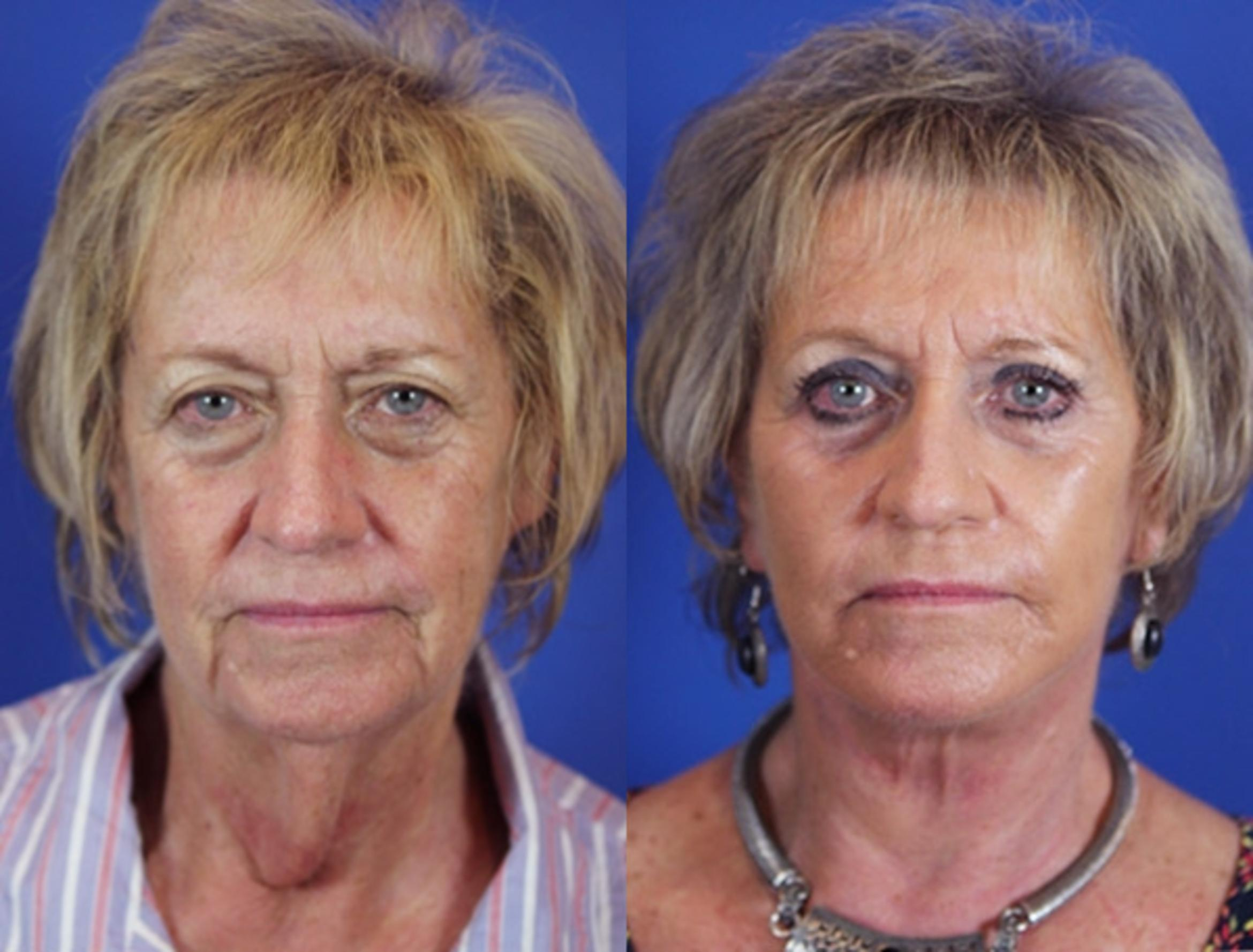 Facelift / Reflection Lift Case 18 Before & After Front | Brentwood, TN | Youthful Reflections
