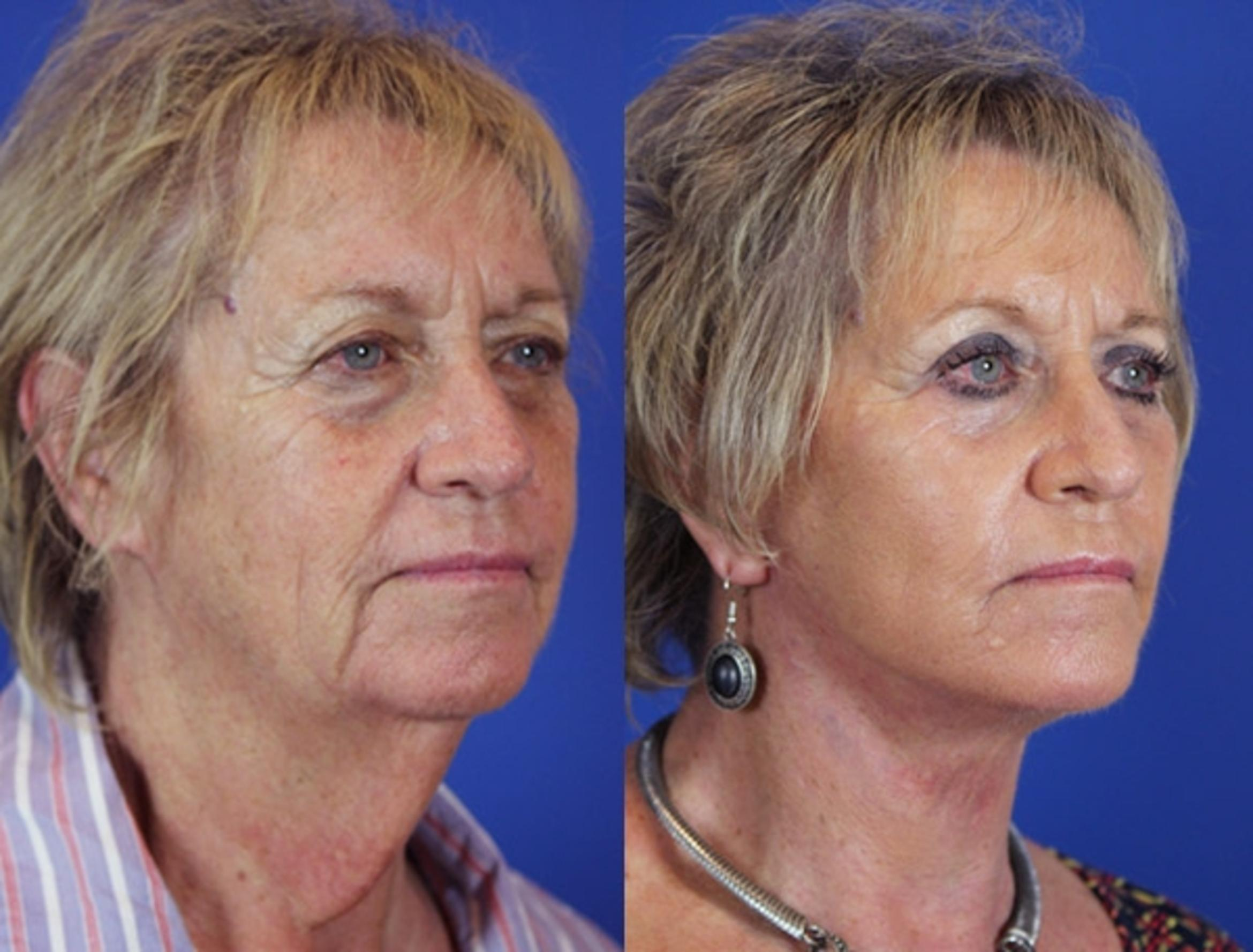 Facelift / Reflection Lift Case 18 Before & After Right Oblique | Brentwood, TN | Youthful Reflections