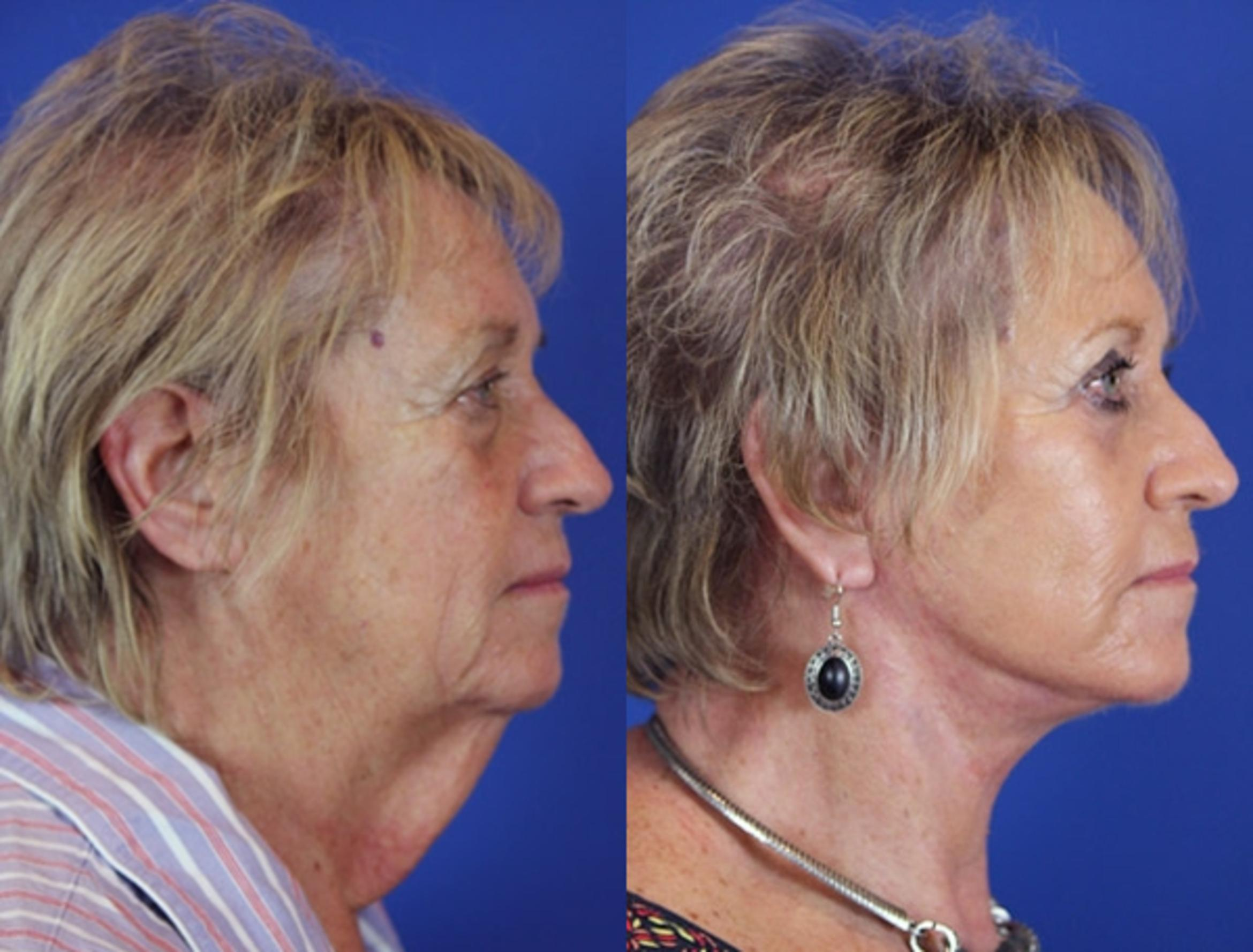 Facelift / Reflection Lift Case 18 Before & After Right Side | Brentwood, TN | Youthful Reflections