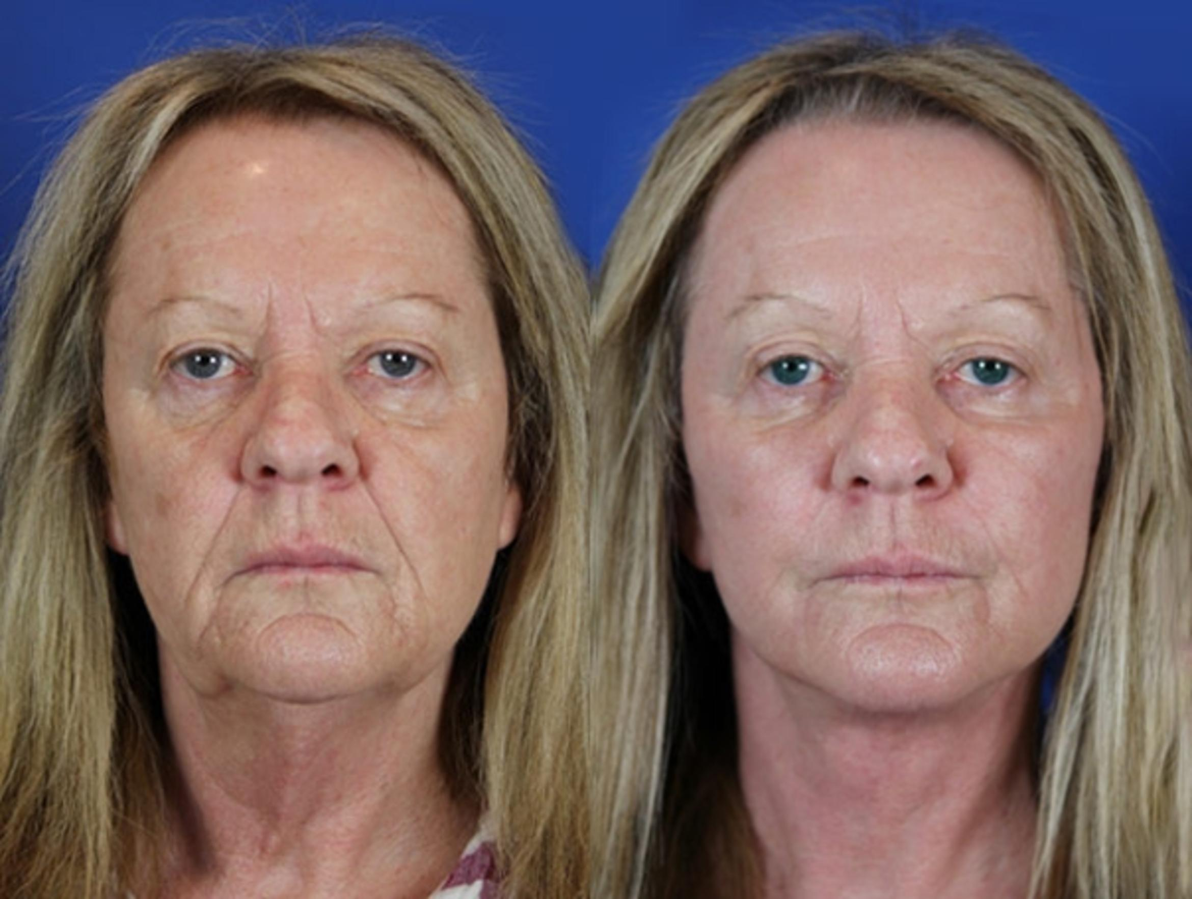 Facelift / Reflection Lift Case 19 Before & After Front | Brentwood, TN | Youthful Reflections