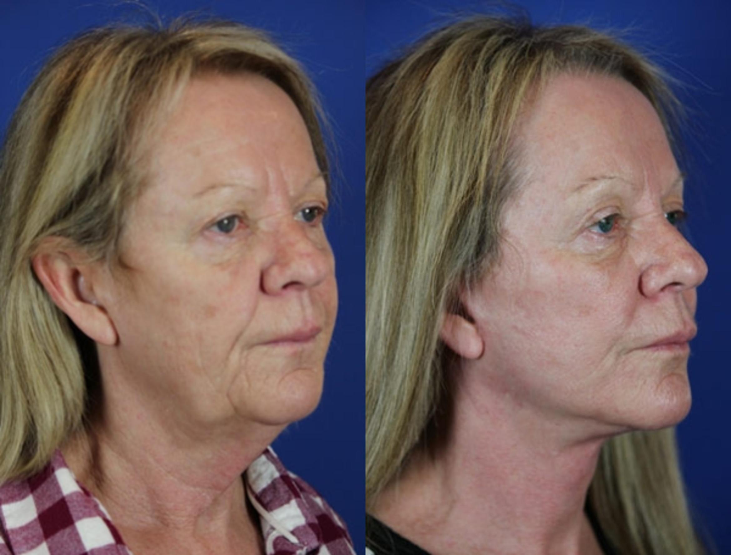 Facelift / Reflection Lift Case 19 Before & After Right Oblique | Brentwood, TN | Youthful Reflections