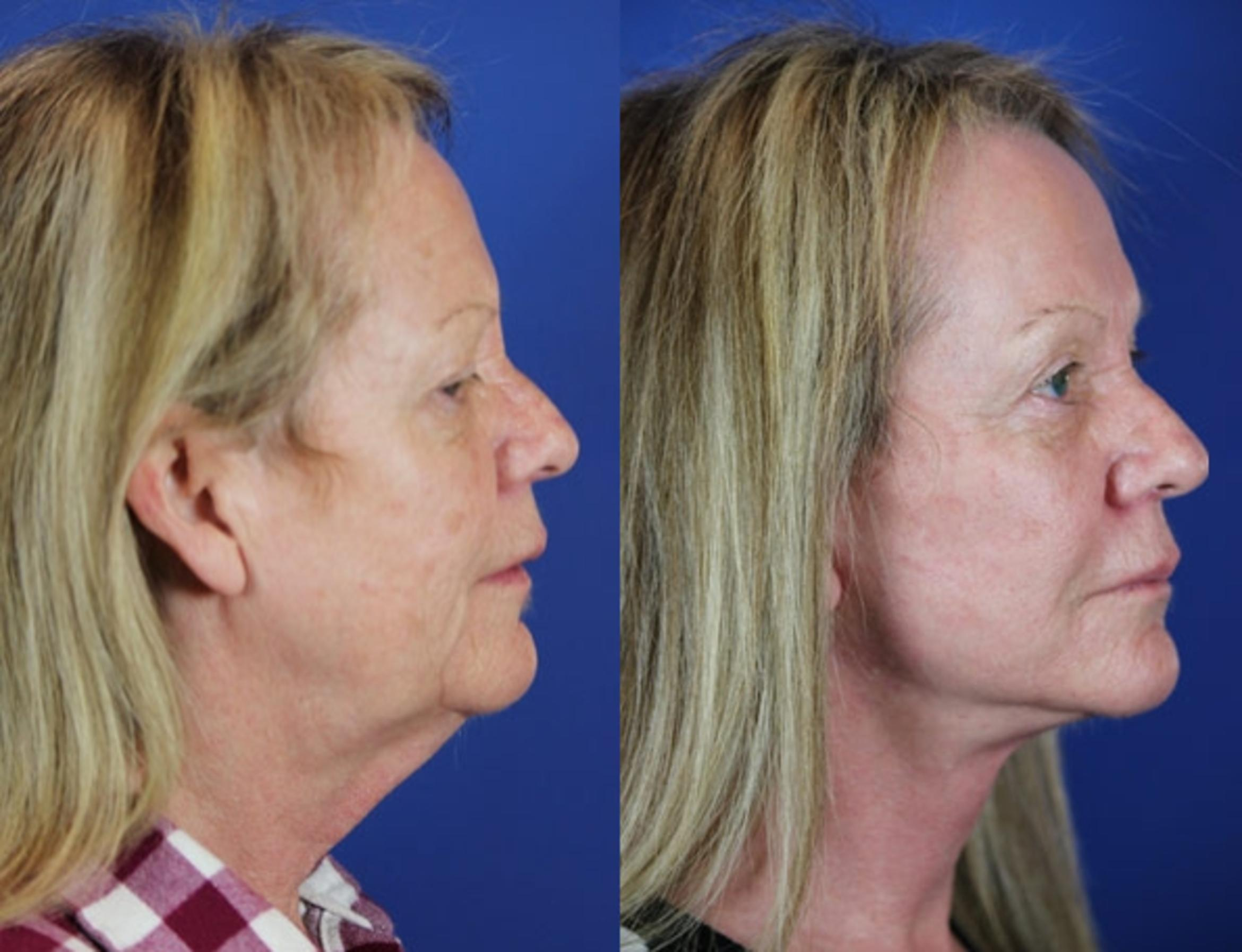 Facelift / Reflection Lift Case 19 Before & After Right Side | Brentwood, TN | Youthful Reflections