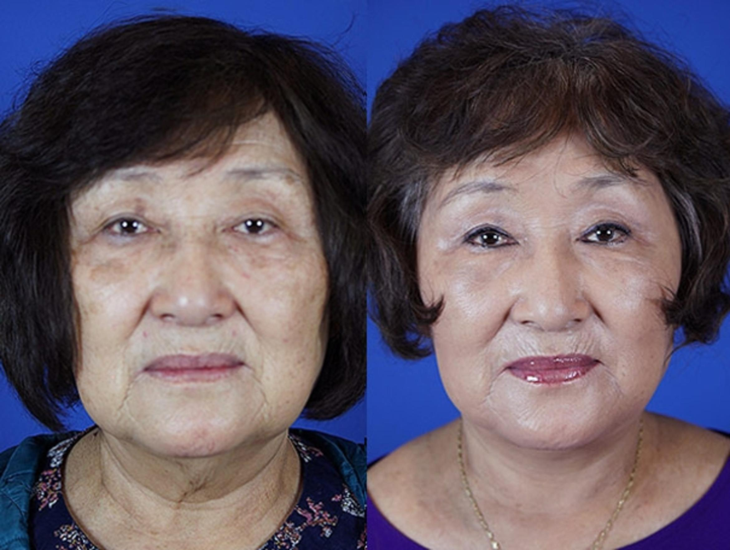 Facelift / Reflection Lift Case 21 Before & After Front | Brentwood, TN | Youthful Reflections
