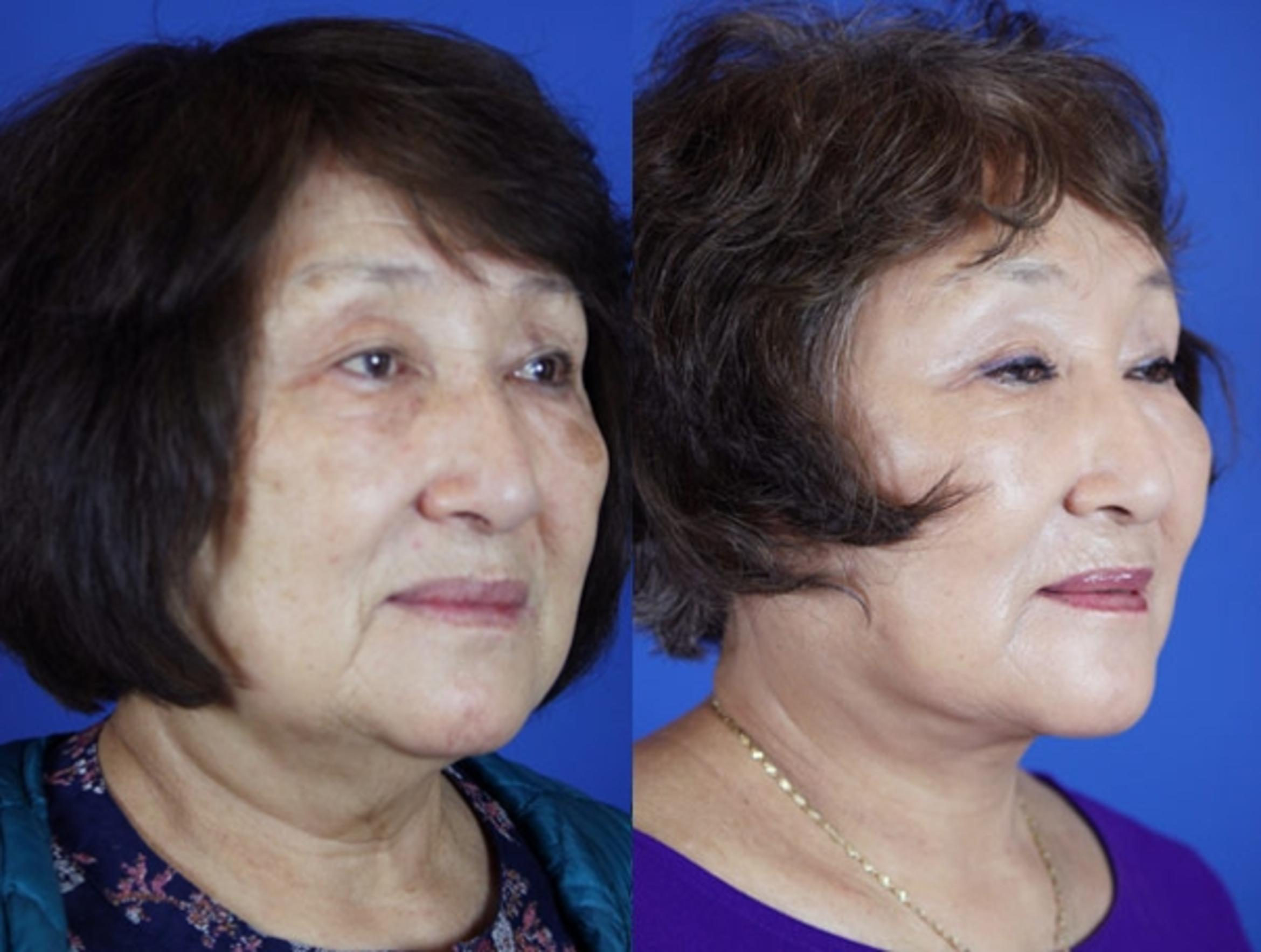 Facelift / Reflection Lift Case 21 Before & After Right Oblique | Brentwood, TN | Youthful Reflections