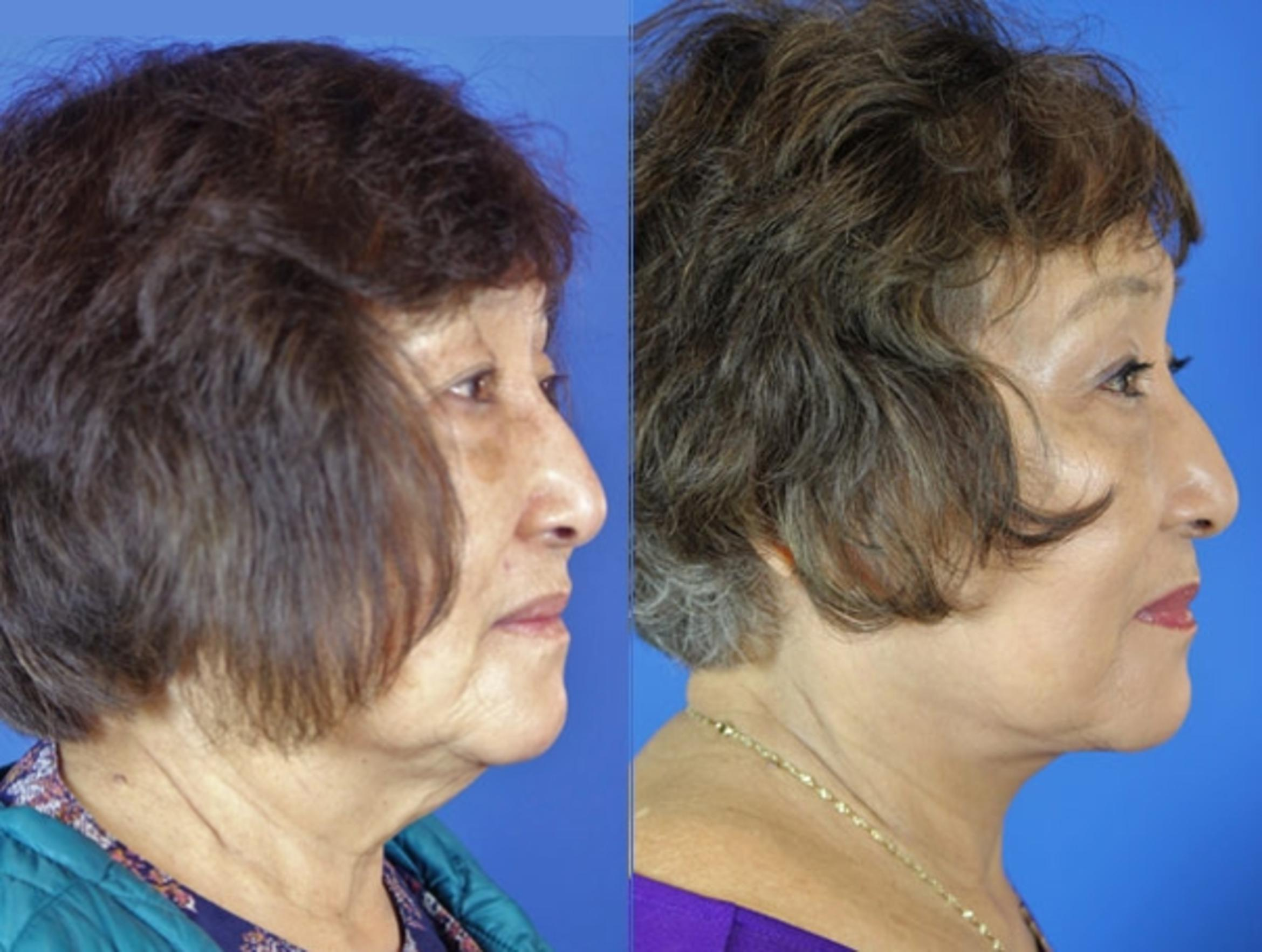 Facelift / Reflection Lift Case 21 Before & After Right Side | Brentwood, TN | Youthful Reflections