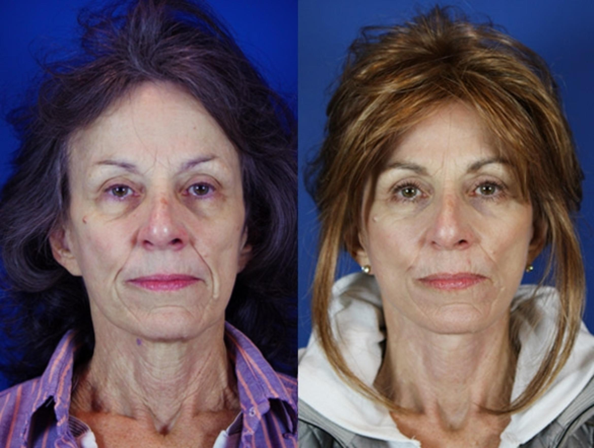 Facelift / Reflection Lift Case 22 Before & After Front | Brentwood, TN | Youthful Reflections