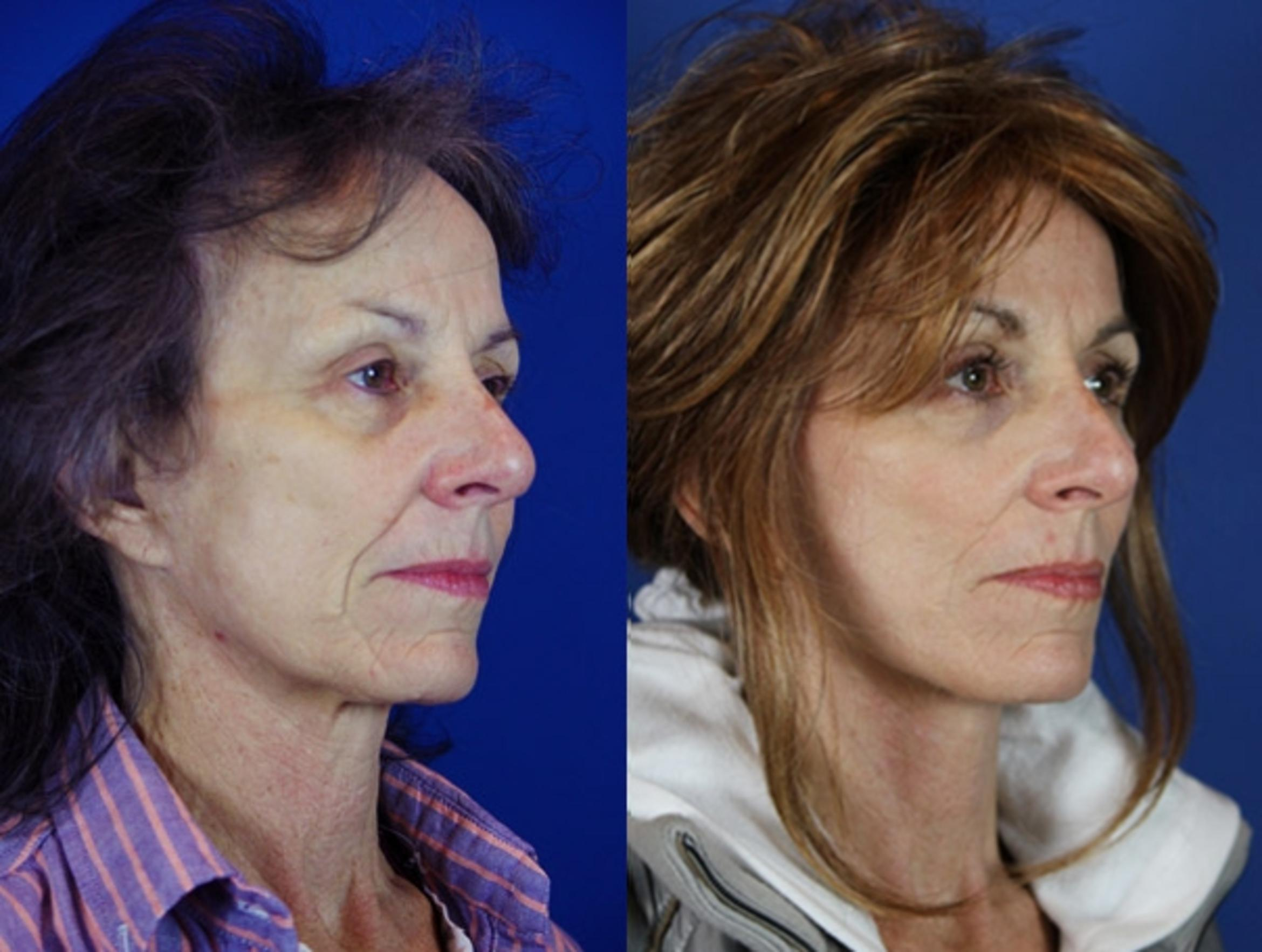 Facelift / Reflection Lift Case 22 Before & After Right Oblique | Brentwood, TN | Youthful Reflections