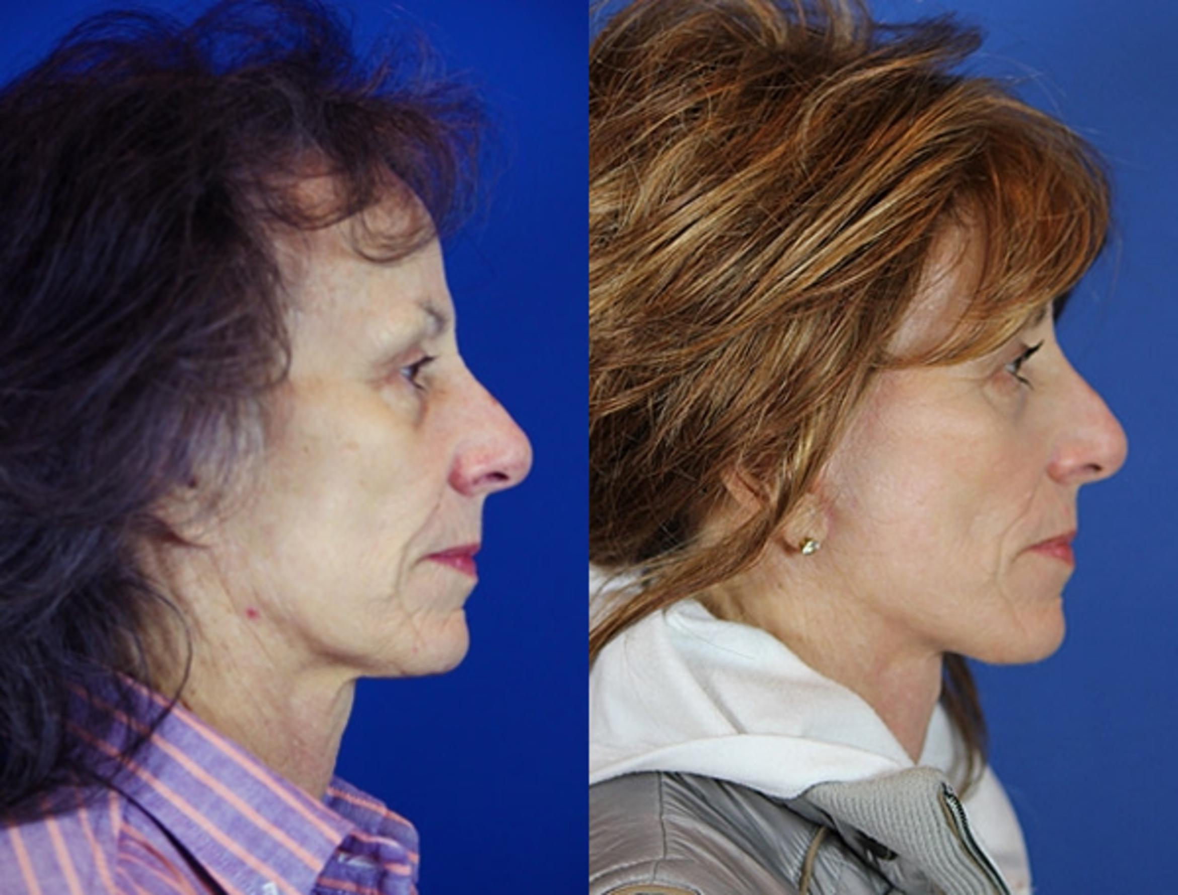 Facelift / Reflection Lift Case 22 Before & After Right Side | Brentwood, TN | Youthful Reflections