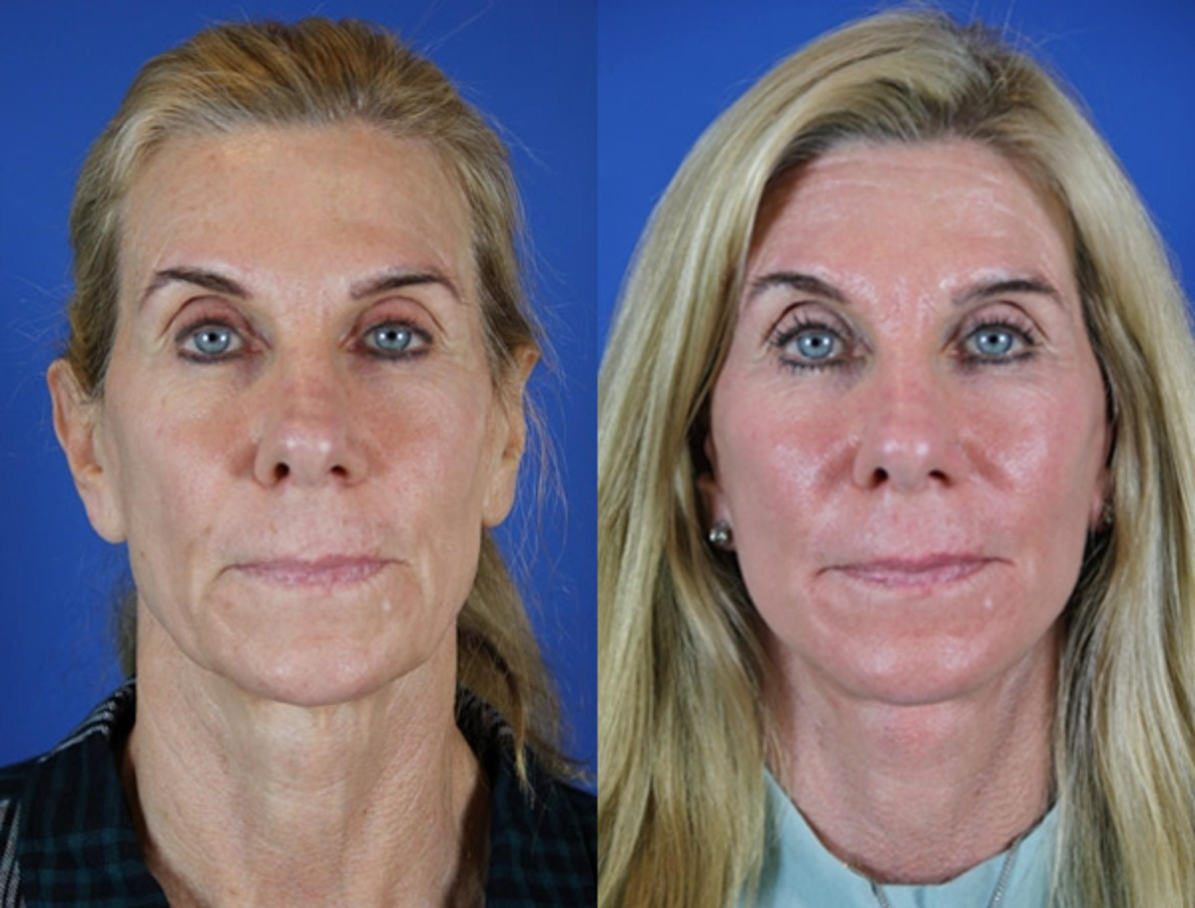 Facelift / Reflection Lift Case 23 Before & After Front | Brentwood, TN | Youthful Reflections