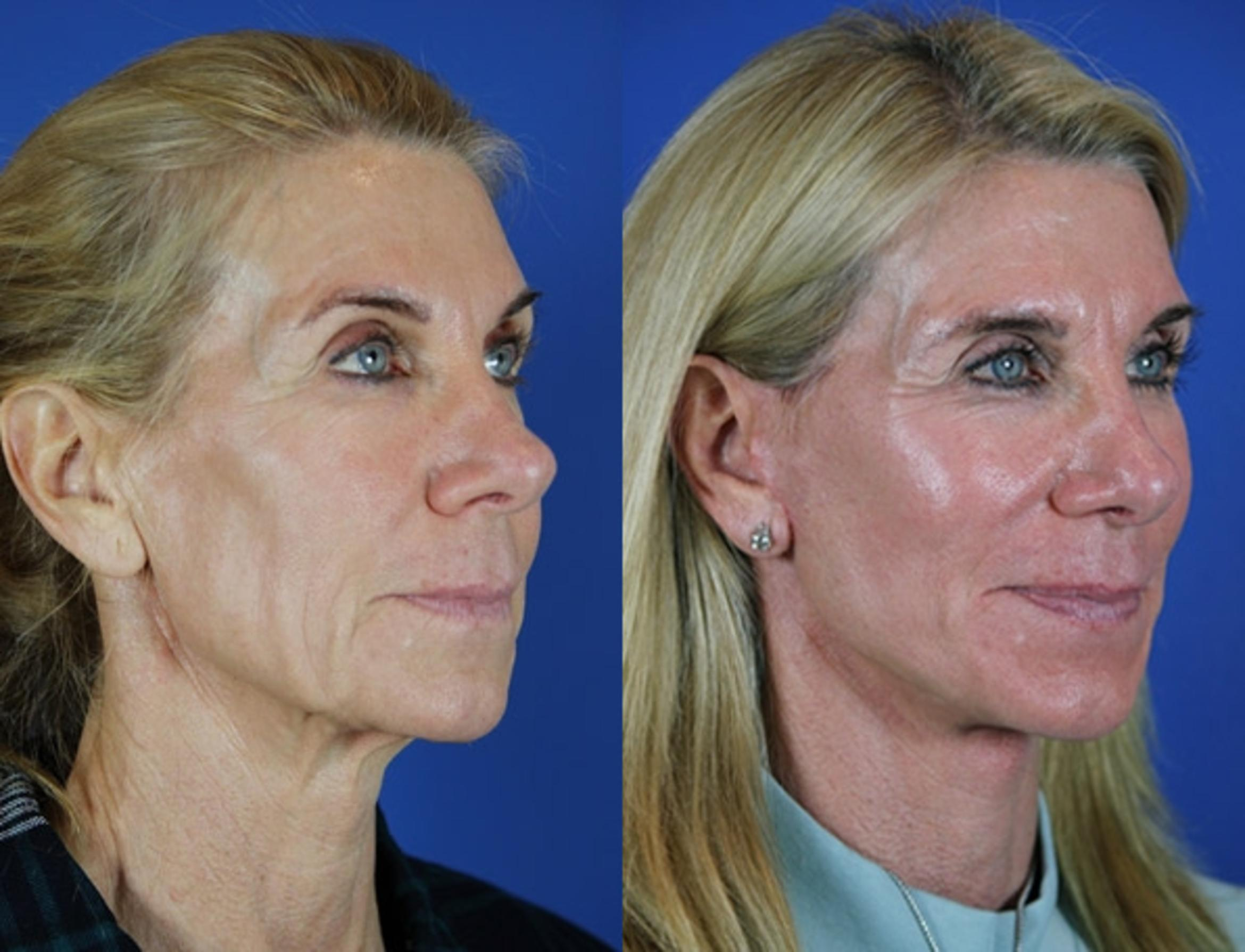 Facelift / Reflection Lift Case 23 Before & After Right Oblique | Brentwood, TN | Youthful Reflections