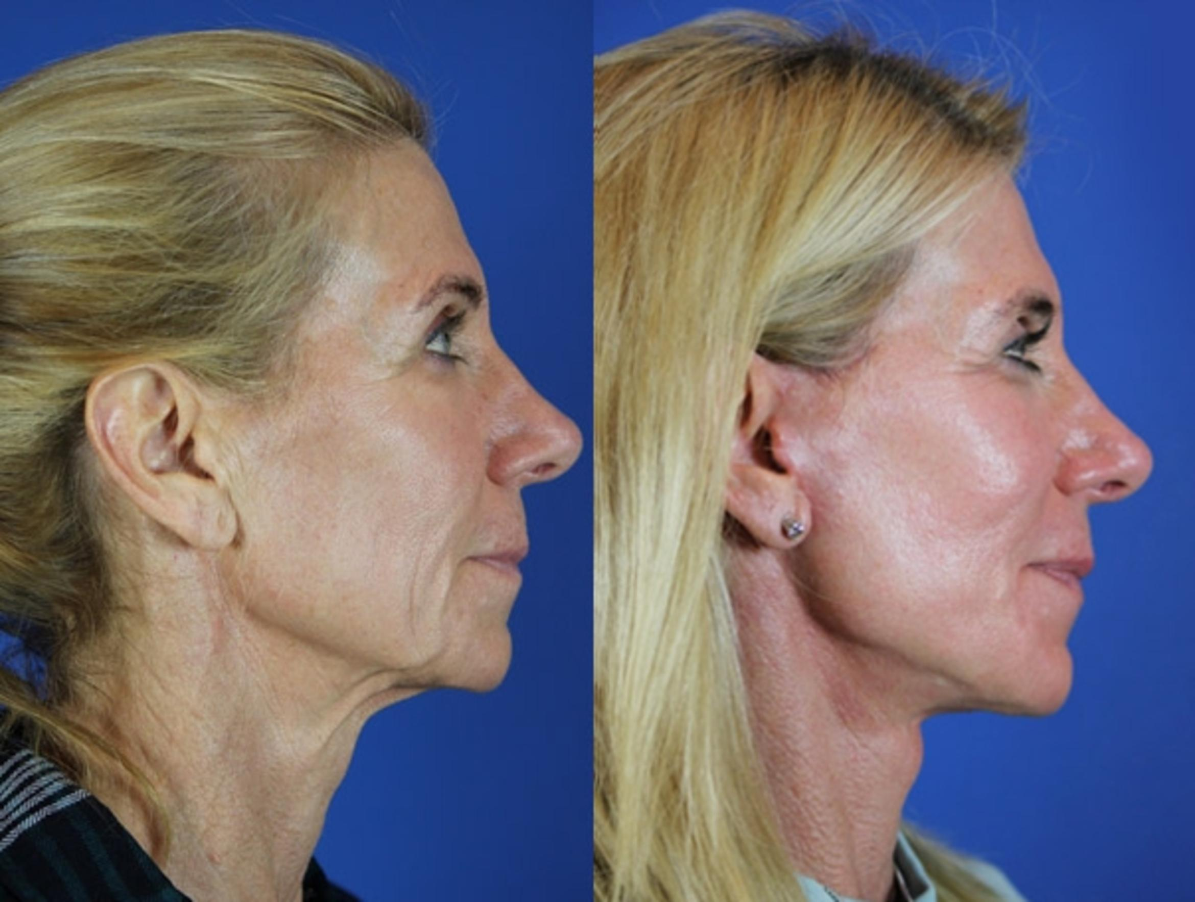 Facelift / Reflection Lift Case 23 Before & After Right Side | Brentwood, TN | Youthful Reflections
