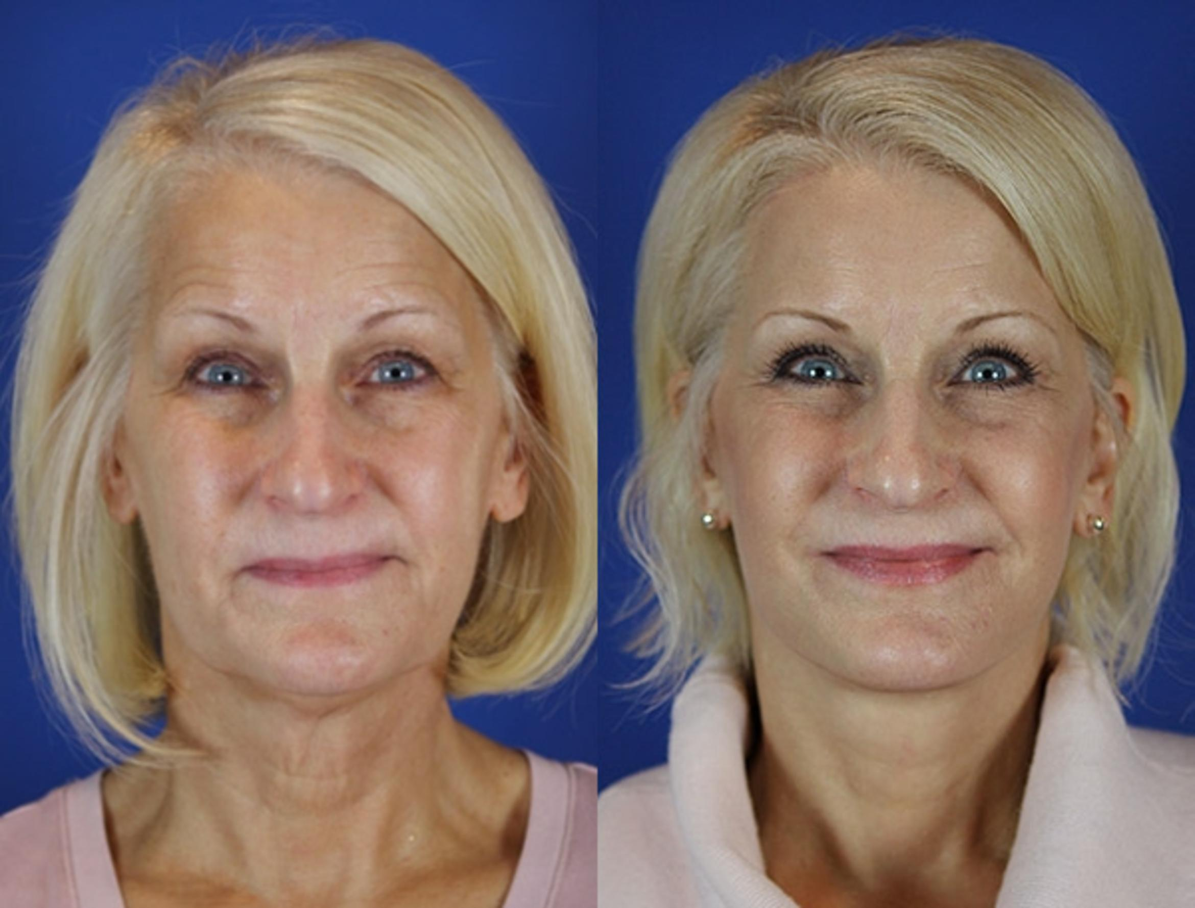 Facelift / Reflection Lift Case 25 Before & After Front | Brentwood, TN | Youthful Reflections