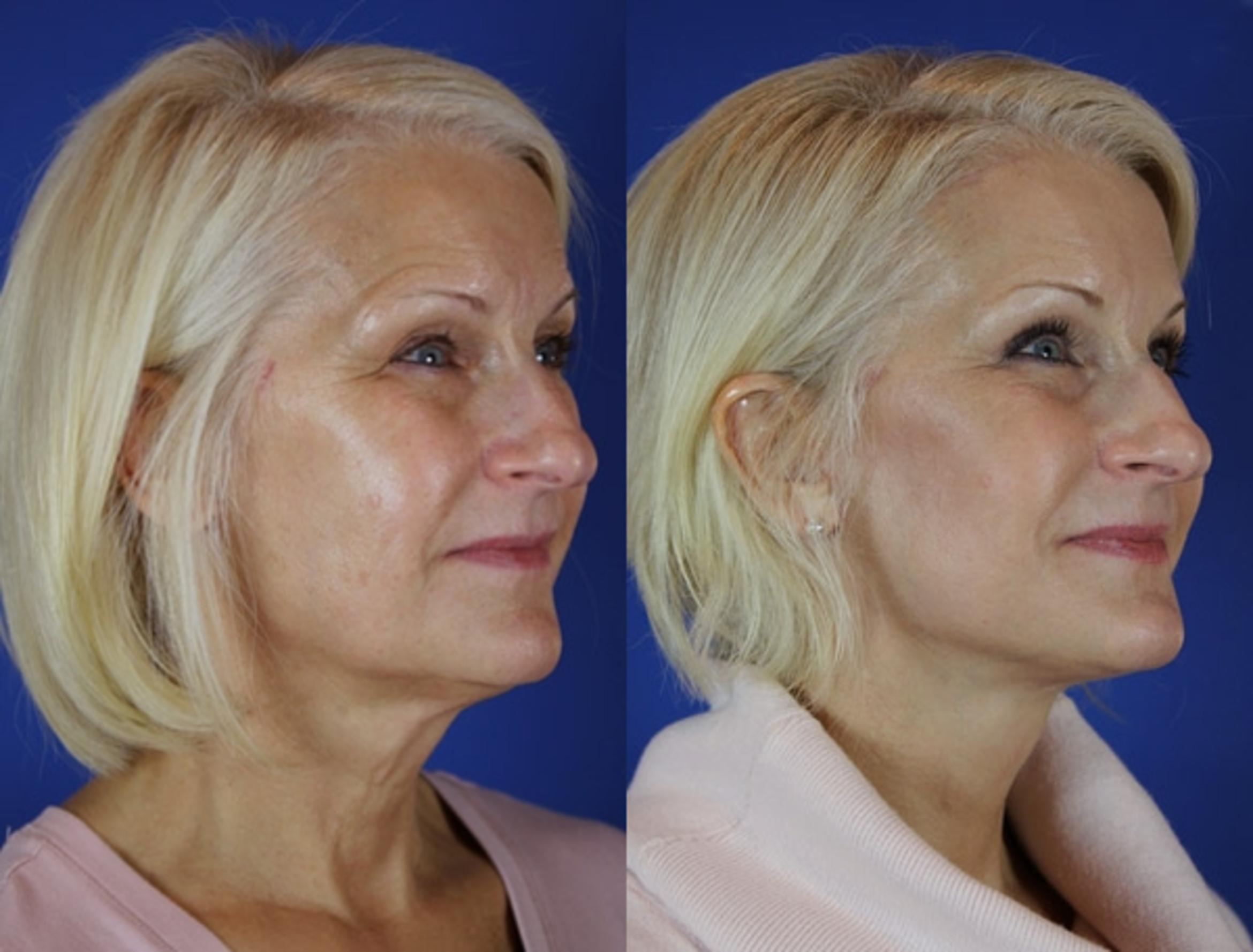 Facelift / Reflection Lift Case 25 Before & After Right Oblique | Brentwood, TN | Youthful Reflections