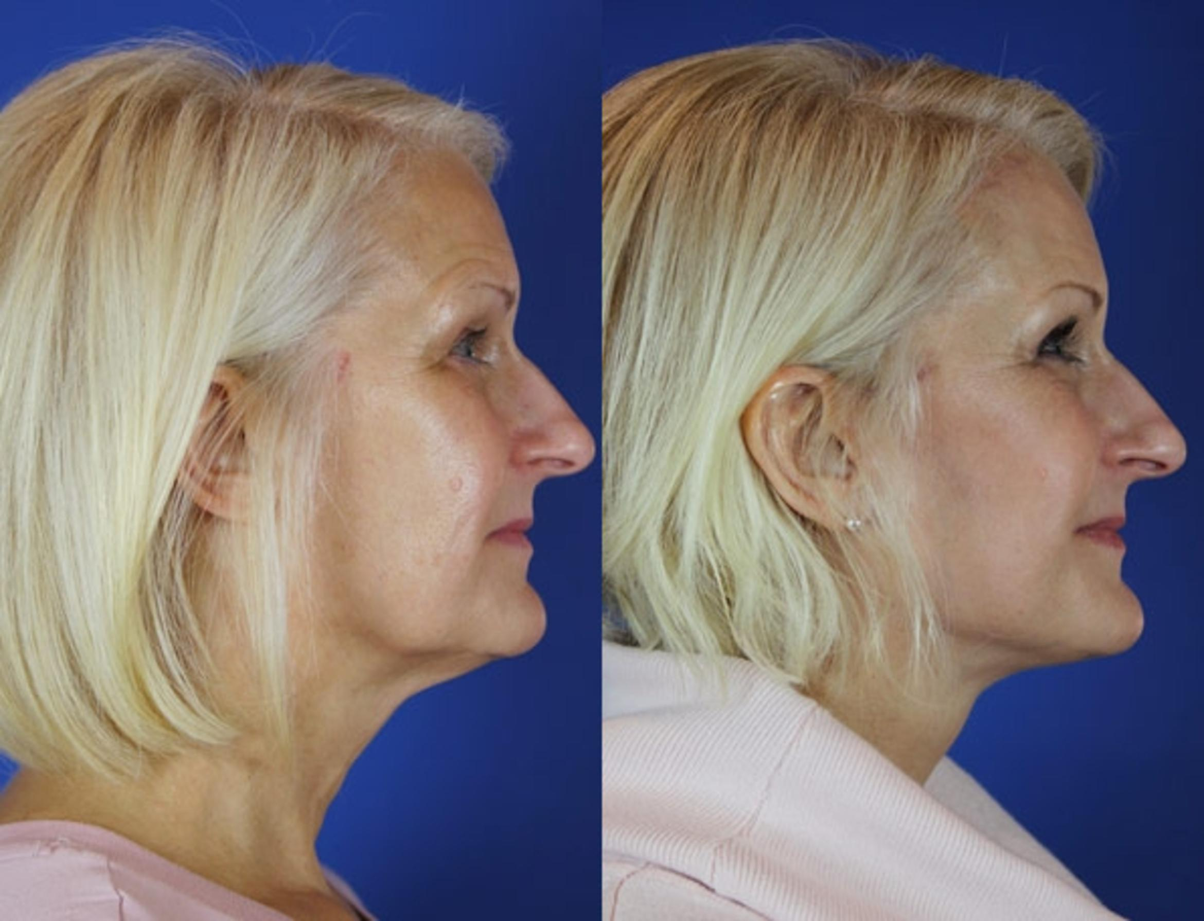 Facelift / Reflection Lift Case 25 Before & After Right Side | Brentwood, TN | Youthful Reflections