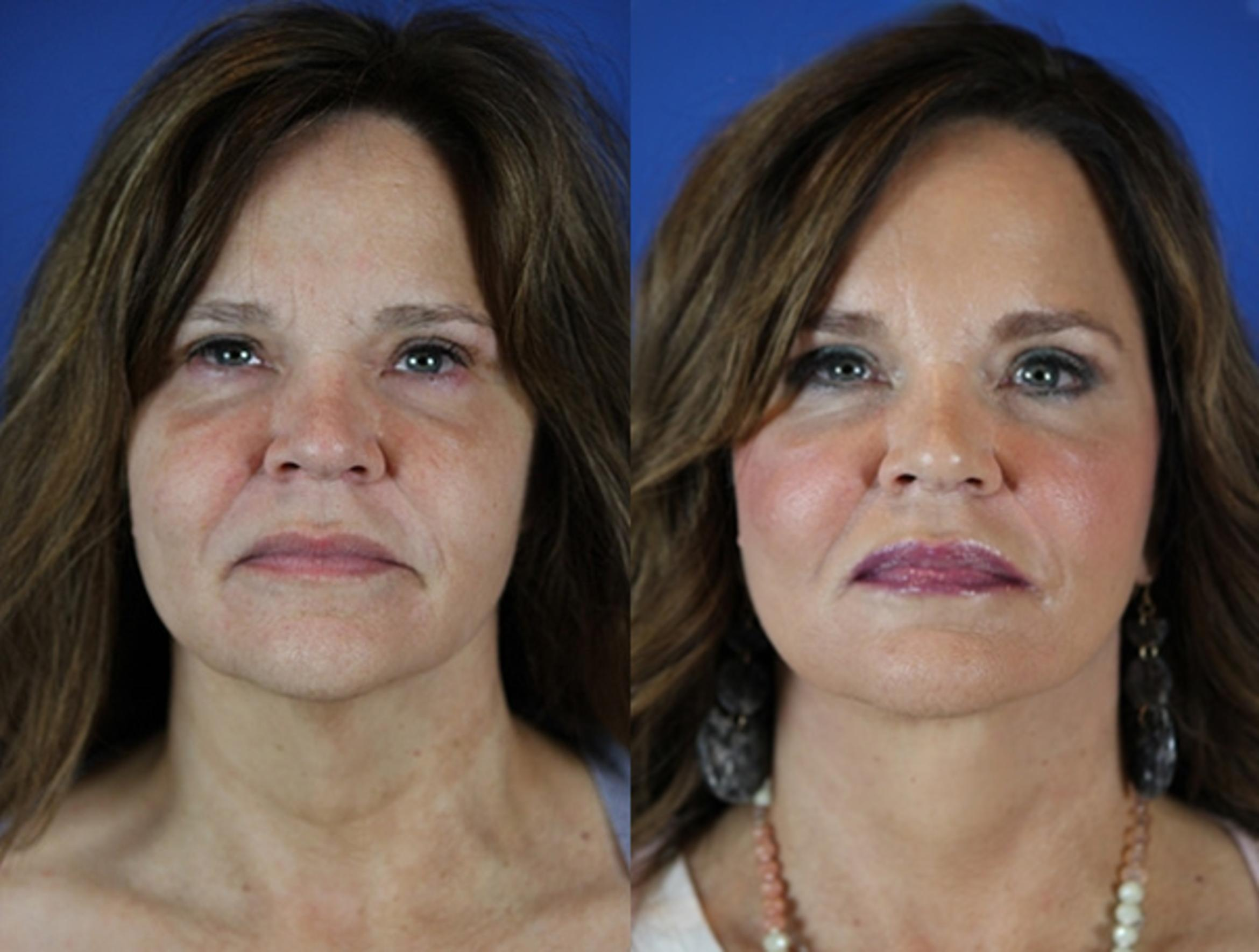 Facelift / Reflection Lift Case 26 Before & After Front | Brentwood, TN | Youthful Reflections