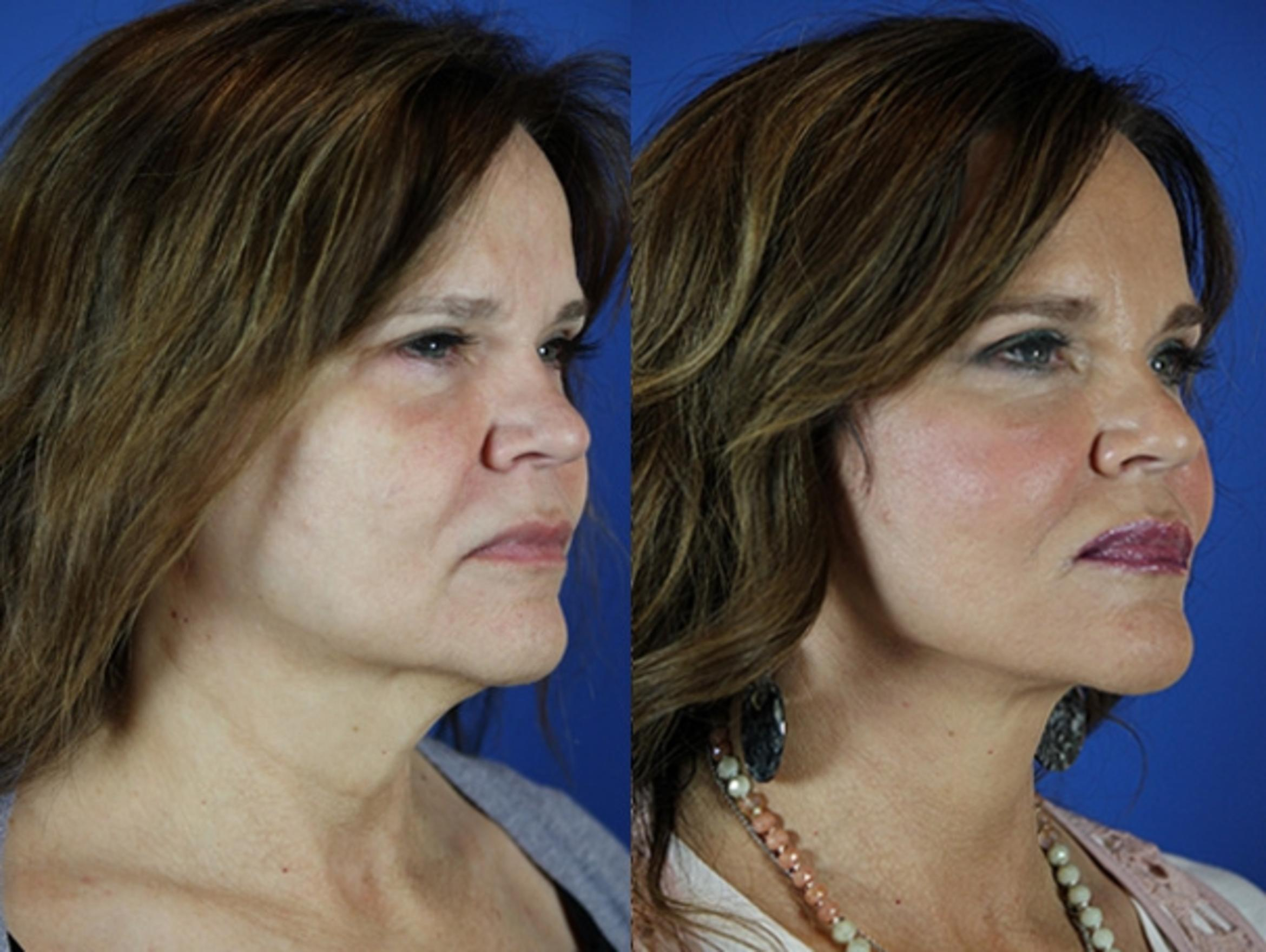 Facelift / Reflection Lift Case 26 Before & After Right Oblique | Brentwood, TN | Youthful Reflections