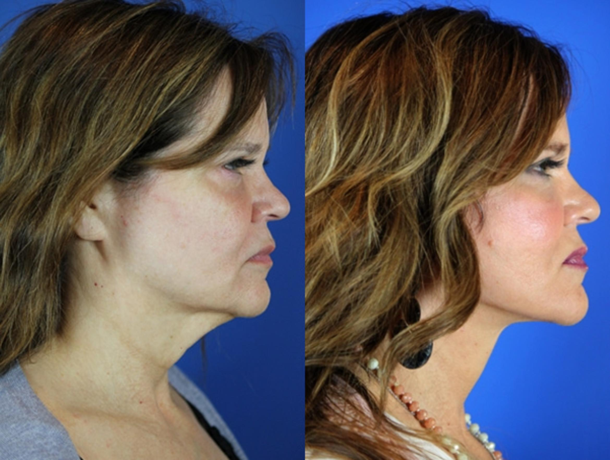 Facelift / Reflection Lift Case 26 Before & After Right Side | Brentwood, TN | Youthful Reflections