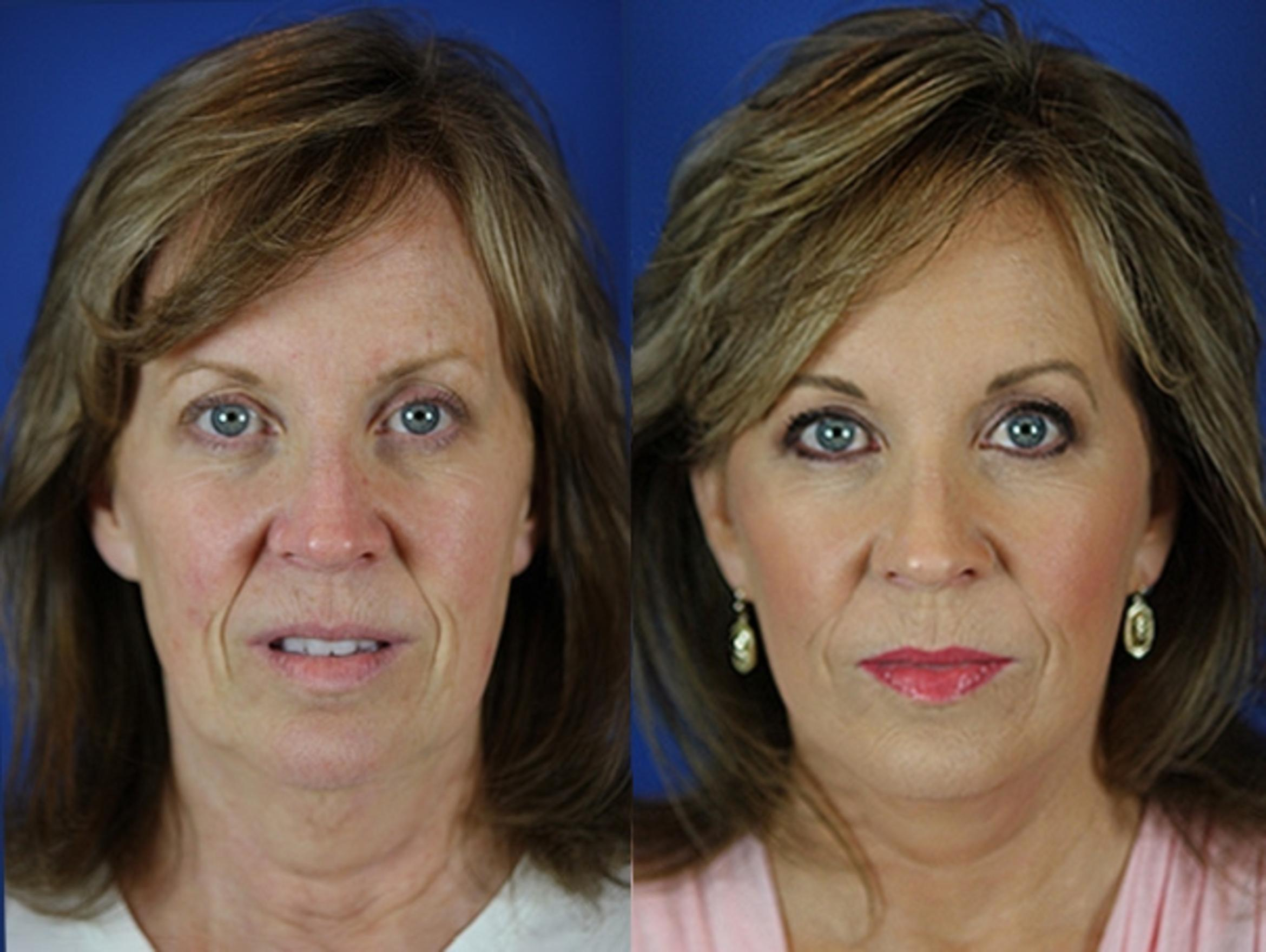 Facelift / Reflection Lift Case 30 Before & After Front | Brentwood, TN | Youthful Reflections