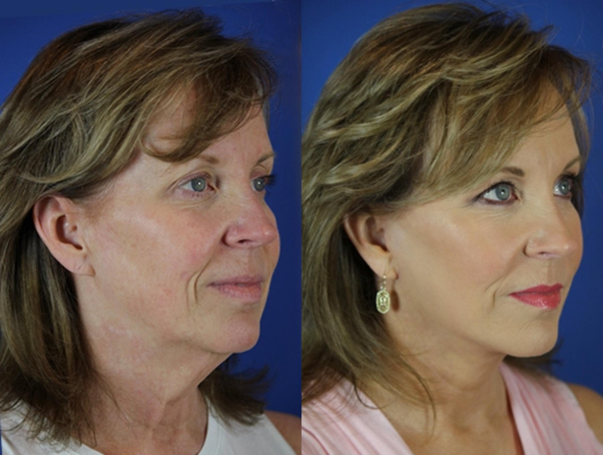 Facelift / Reflection Lift Case 30 Before & After Right Oblique | Brentwood, TN | Youthful Reflections