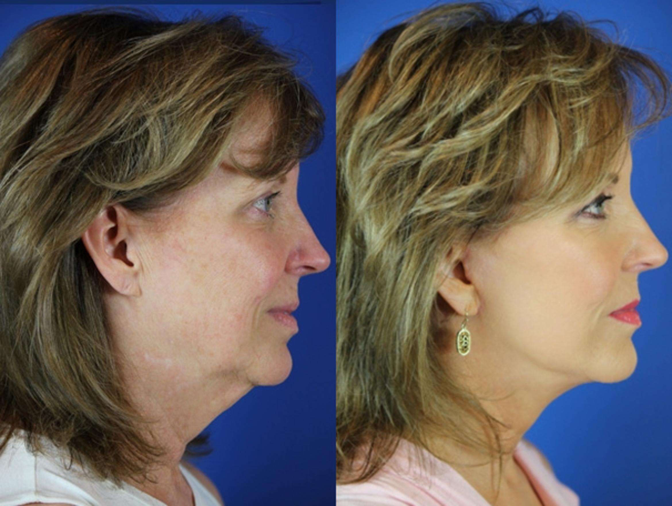 Facelift / Reflection Lift Case 30 Before & After Right Side | Brentwood, TN | Youthful Reflections